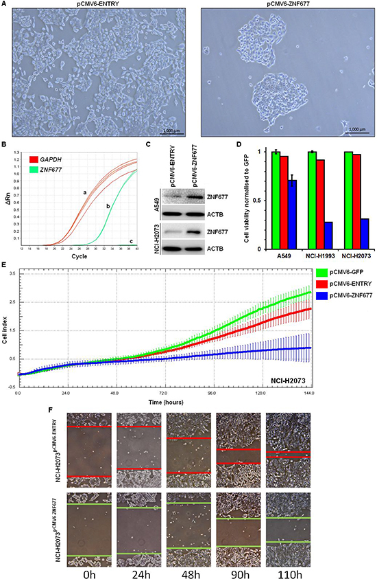 Cell viability, cell proliferation and cell migration of pCMV6-ZNF677 transfected NSCLC cells.