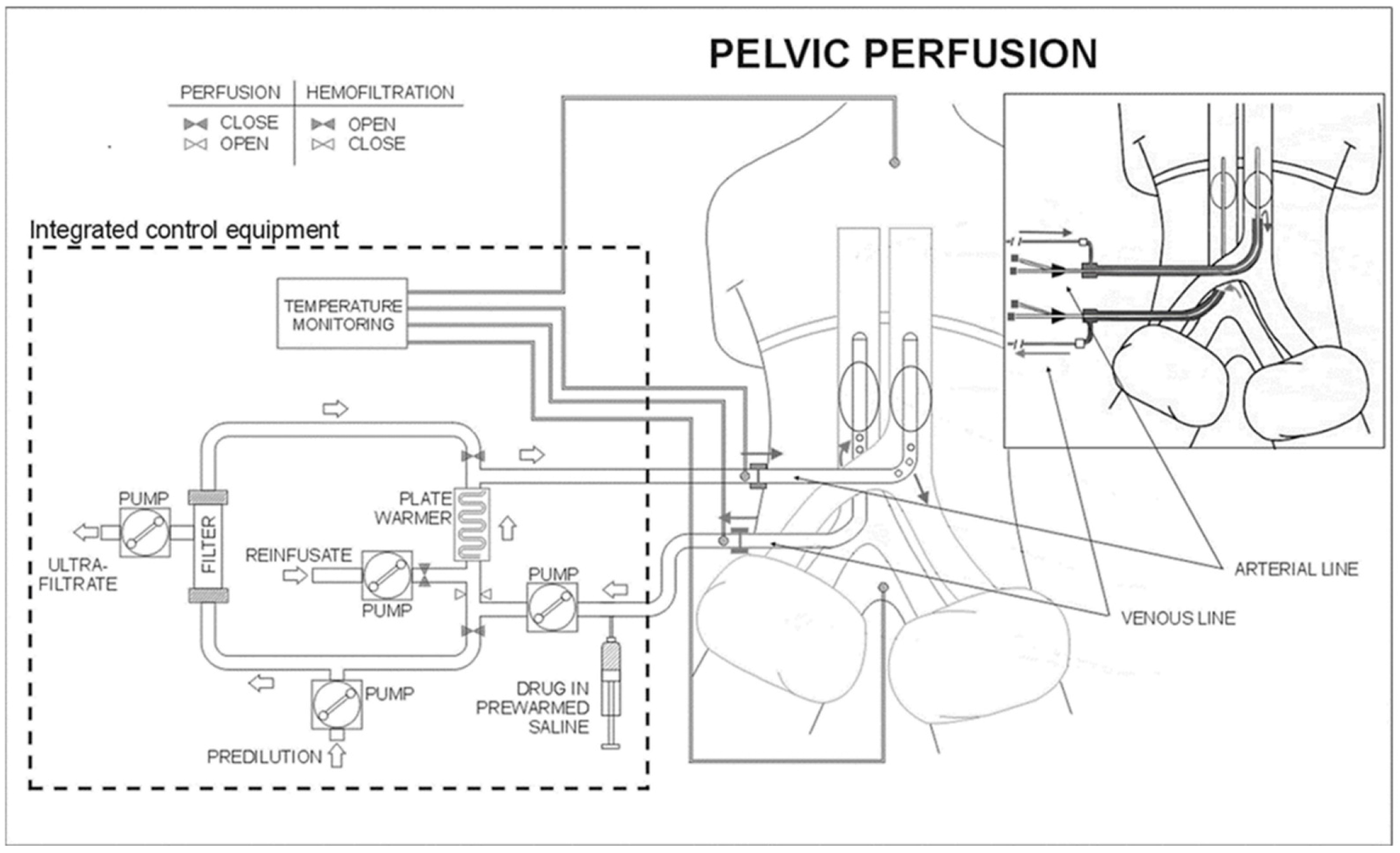 Schematic representation of the surgical and percutaneous hypoxic pelvic perfusion (HPP) procedures, with chemofiltration