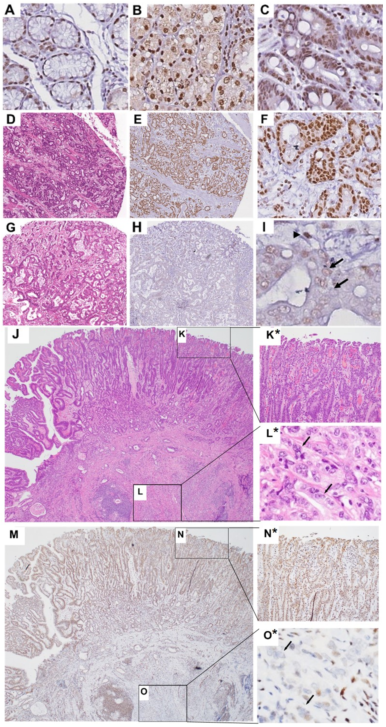Representative nuclear FLI1 IHC staining in normal, IM and gastric adenocarcinoma tissues