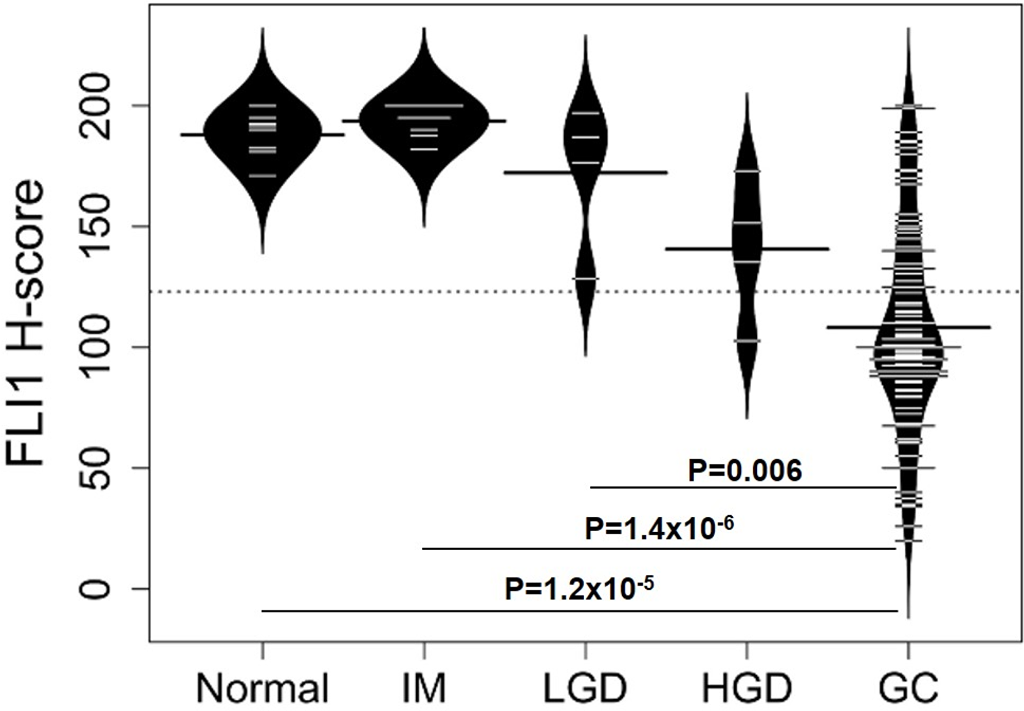 Distributions of FLI1 H-scores for different types of gastric tissue