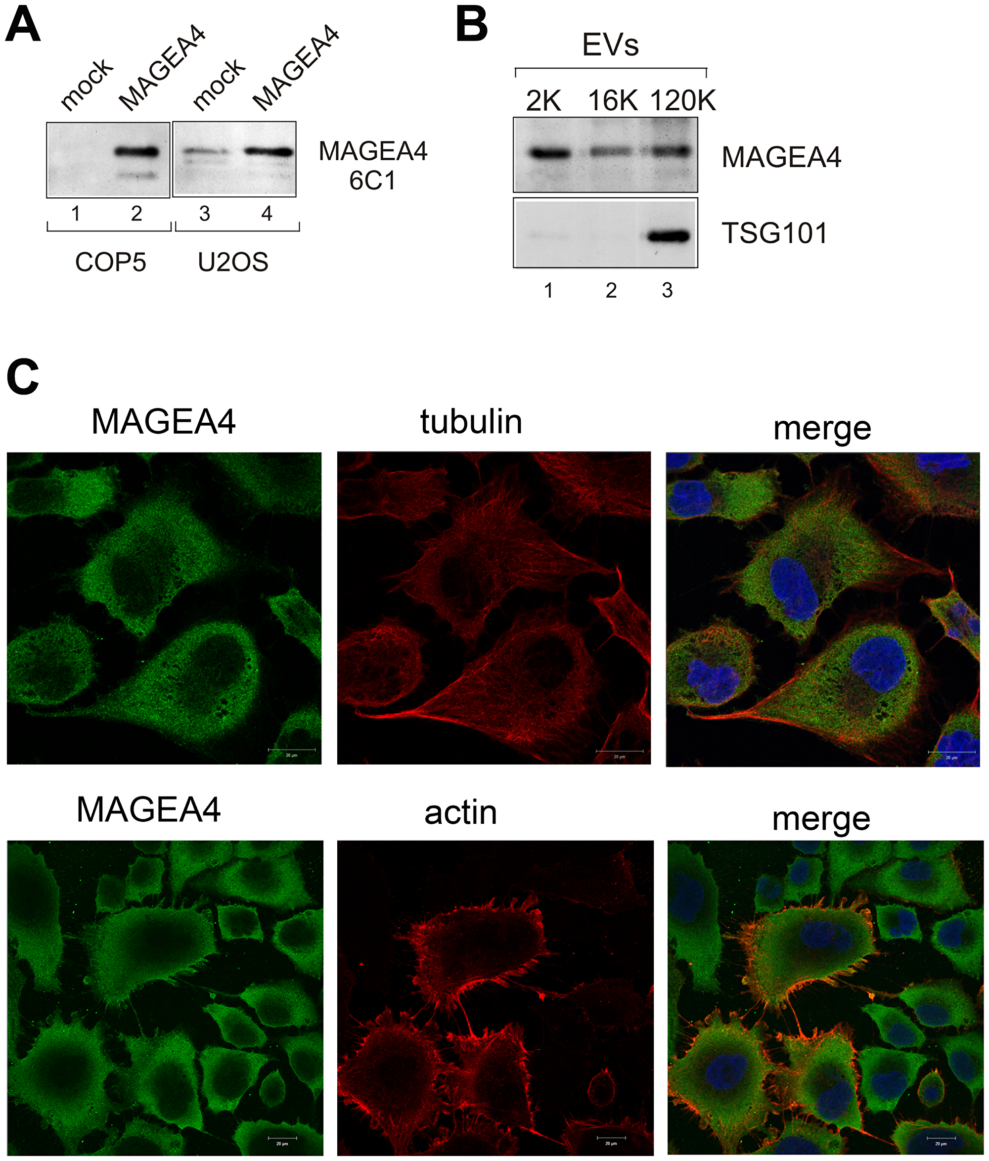 Endogenous MAGEA4 is incorporated into EVs.
