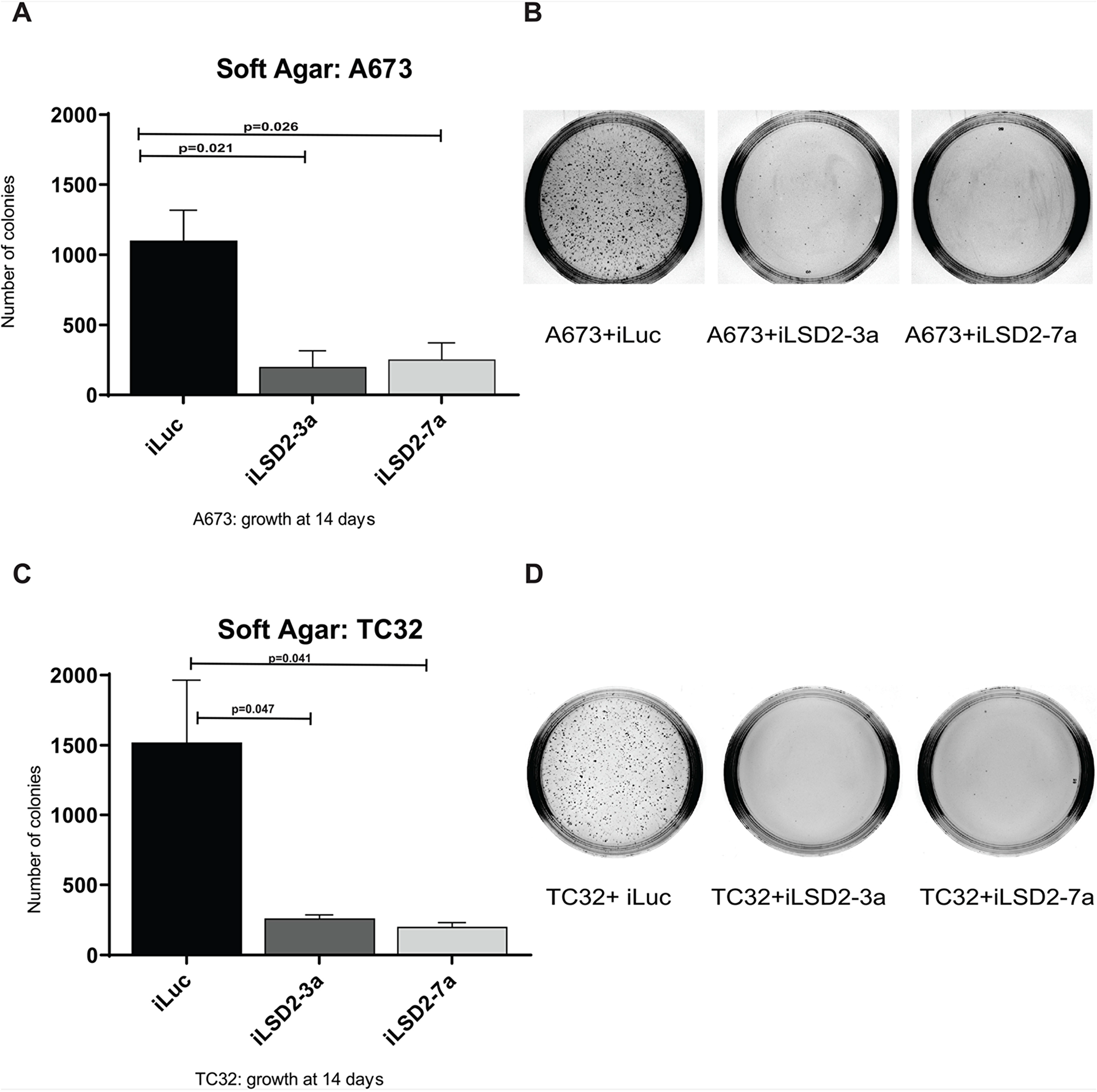 LSD2 knockdown significantly impairs the anchorage-independent growth capacity of Ewing sarcoma cells.
