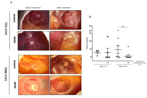 Chick Chorioallantoic Membrane (CAM) tumor growth assay as a model to study PCTK1 inhibition