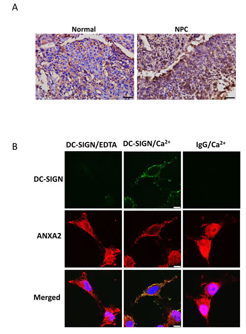 Expression and localization of ANXA2 in NPC.