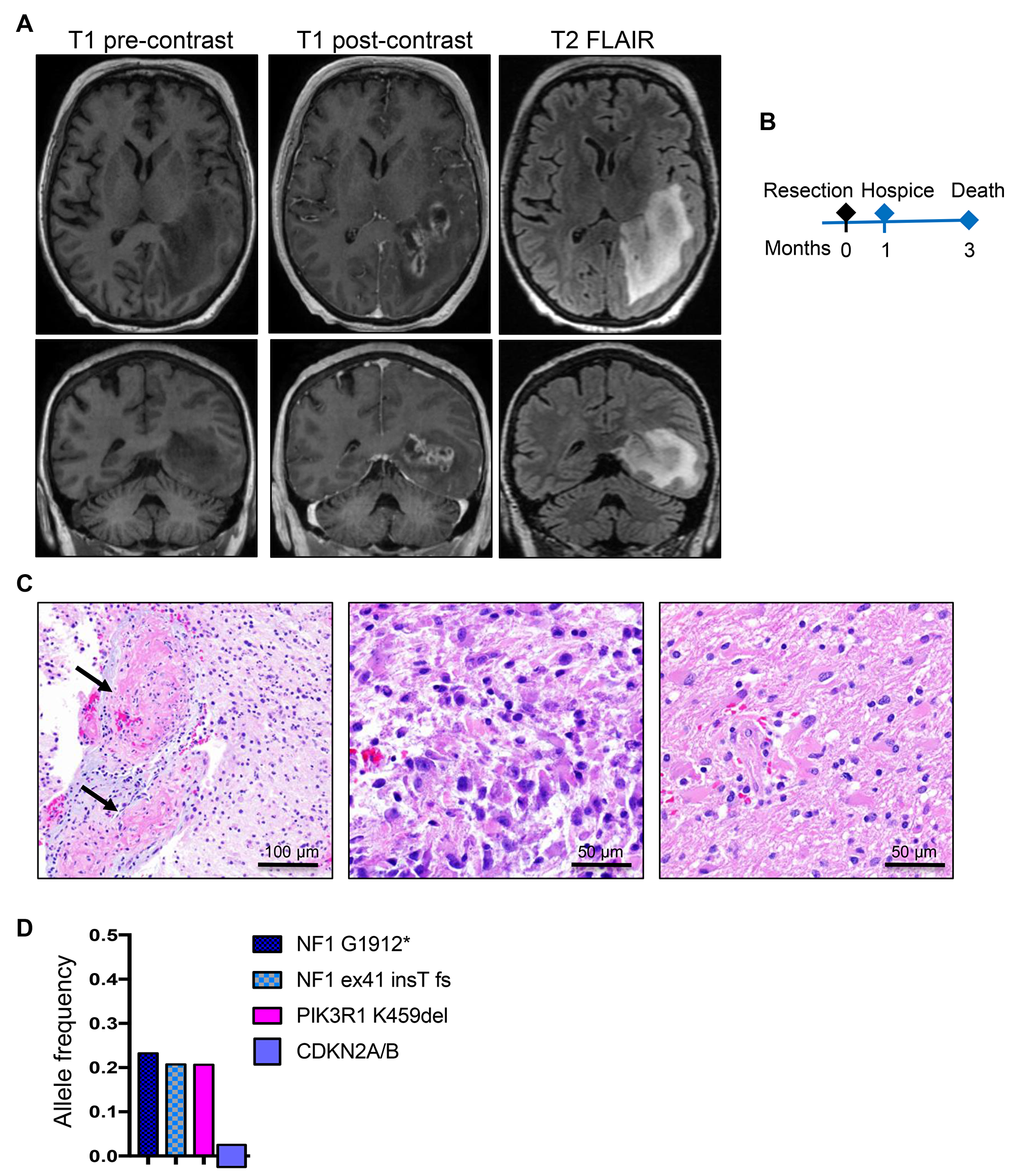 Patient 2: Aggressive periventricular glioblastoma with NF1 mutations and 3-month survival.
