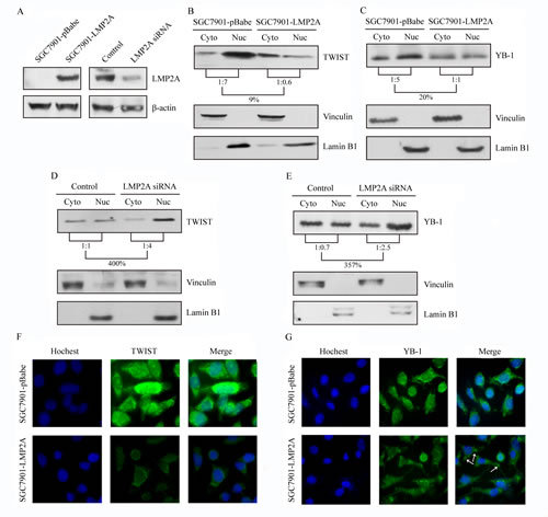 LMP2A down-regulated the compositional ratio of the nuclear fractions of TWIST and YB-1, and trigger their changes of subcellular localization.