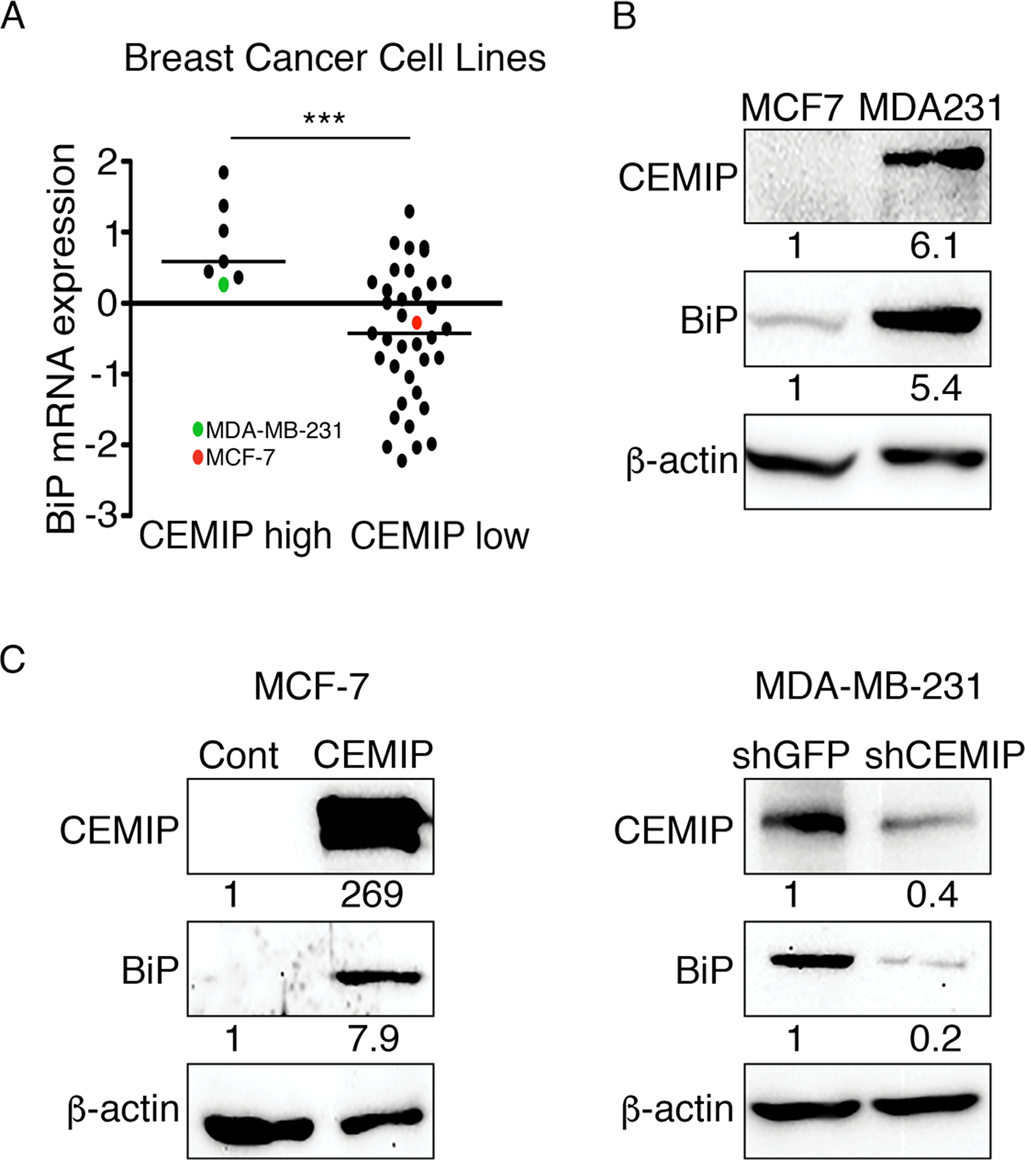 CEMIP upregulates BiP in human breast cancer cell lines.