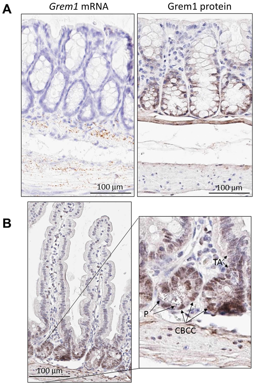 Distinct pattern of endogenous Grem1 expression in mouse colon.