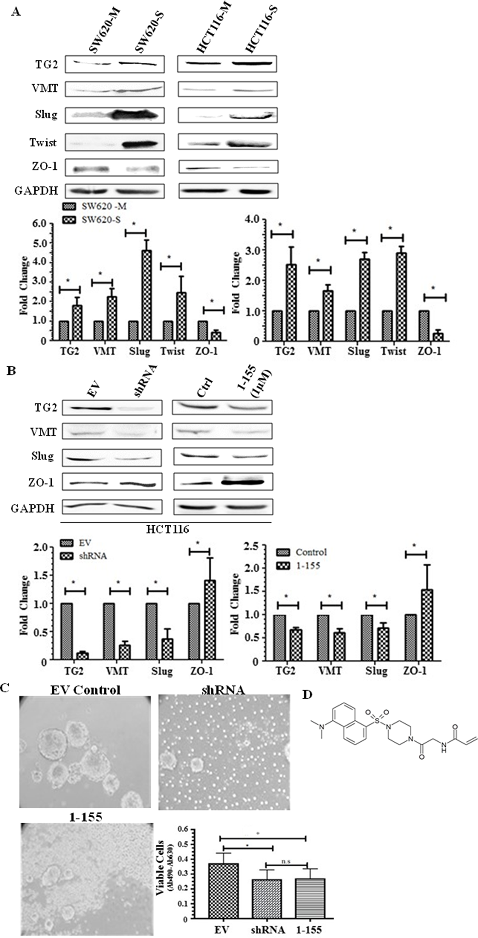 TG2 and EMT is upregulated in spheroid cells with stem cell-like properties.