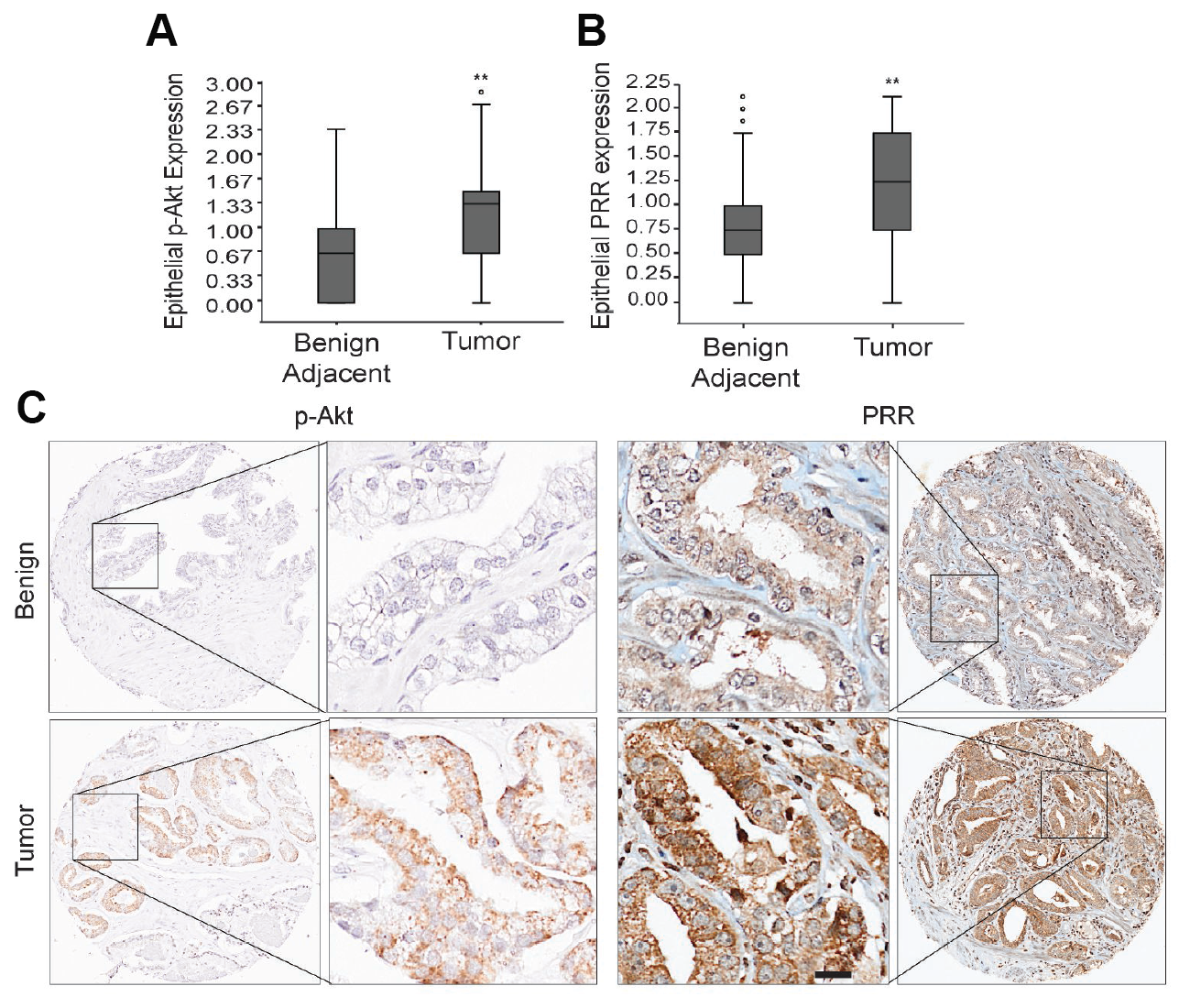 Analysis of p-Akt and PRR expression in prostate cancer tissue microarrays.