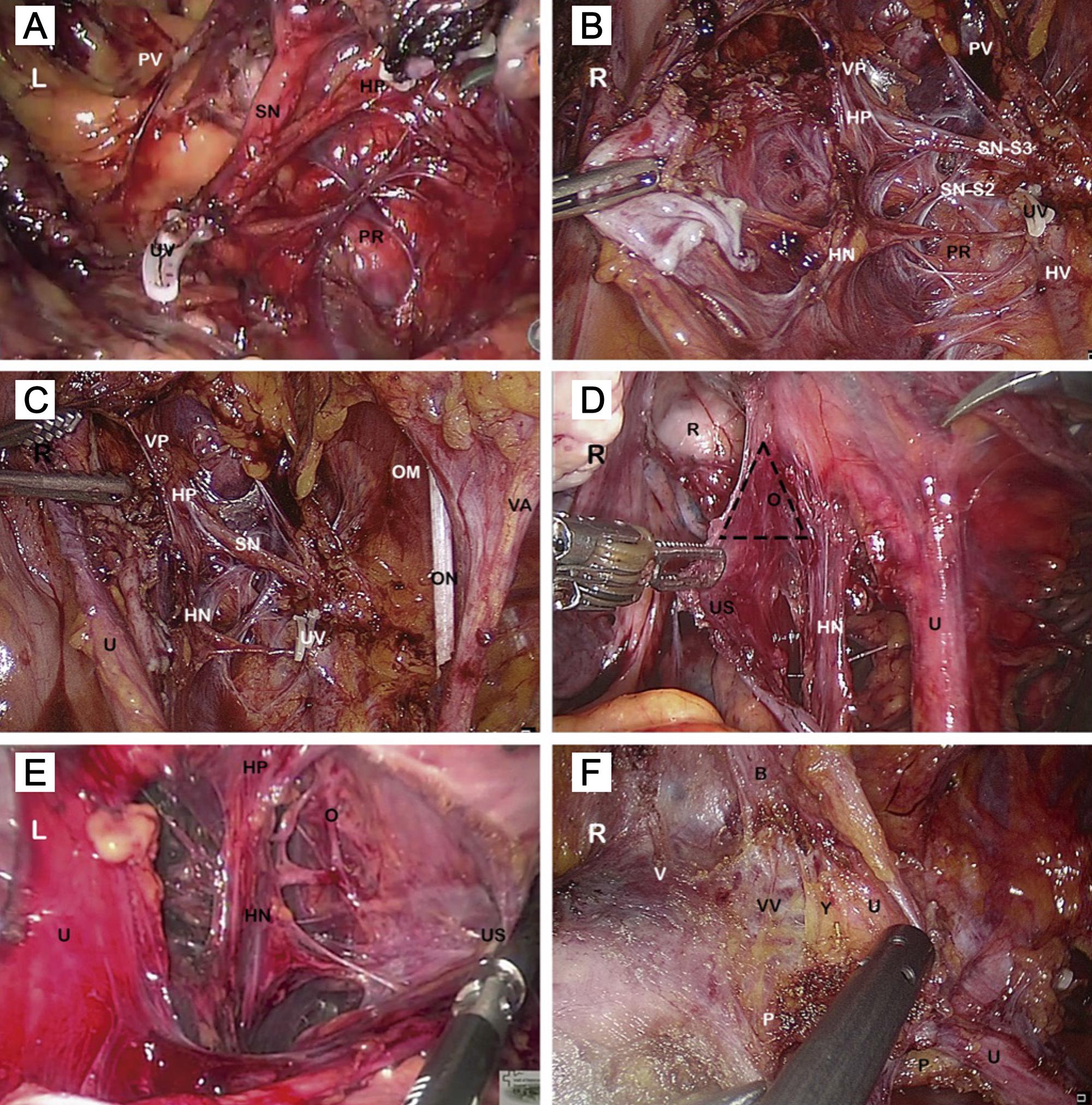 Nerve-sparing radical hysterectomy: Key steps.