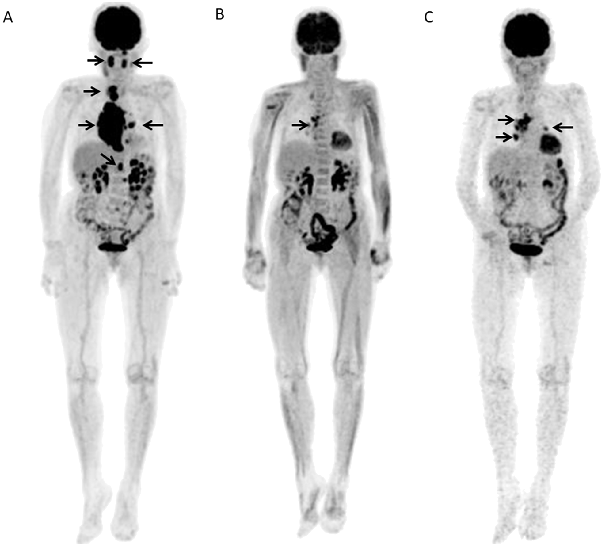 A 80-year-old female with DLBCL received 6 R-CHOP courses and then showed further progression at 0.41 years after the end of chemotherapy.