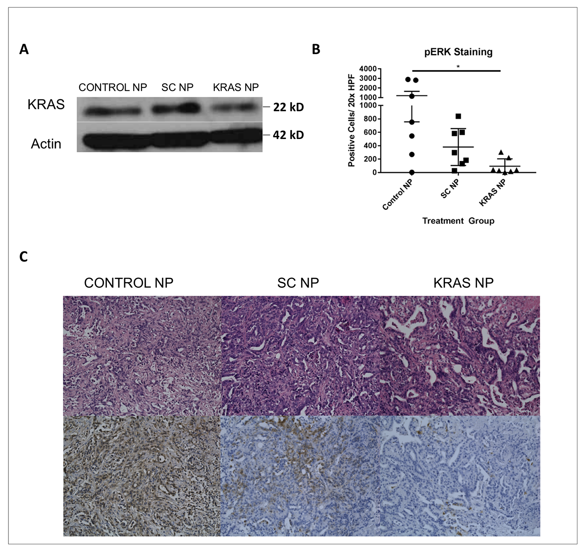 Tumors treated with KRAS siRNA NP demonstrate knockdown of the KRAS signaling pathway.