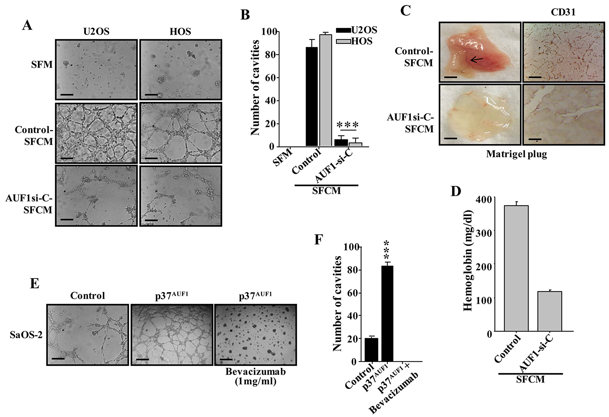 AUF1 enhances the capacity of osteosarcoma cells in promoting endothelial differentiation and angiogenesis in a VEGF-A-dependent manner.