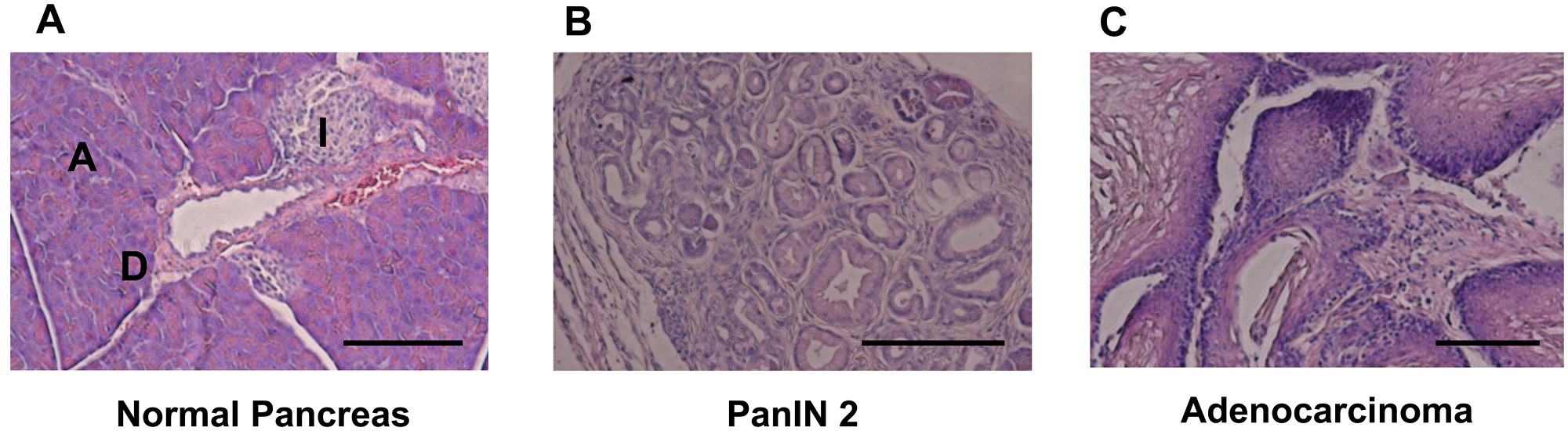 HE staining for pancreatic tissue.