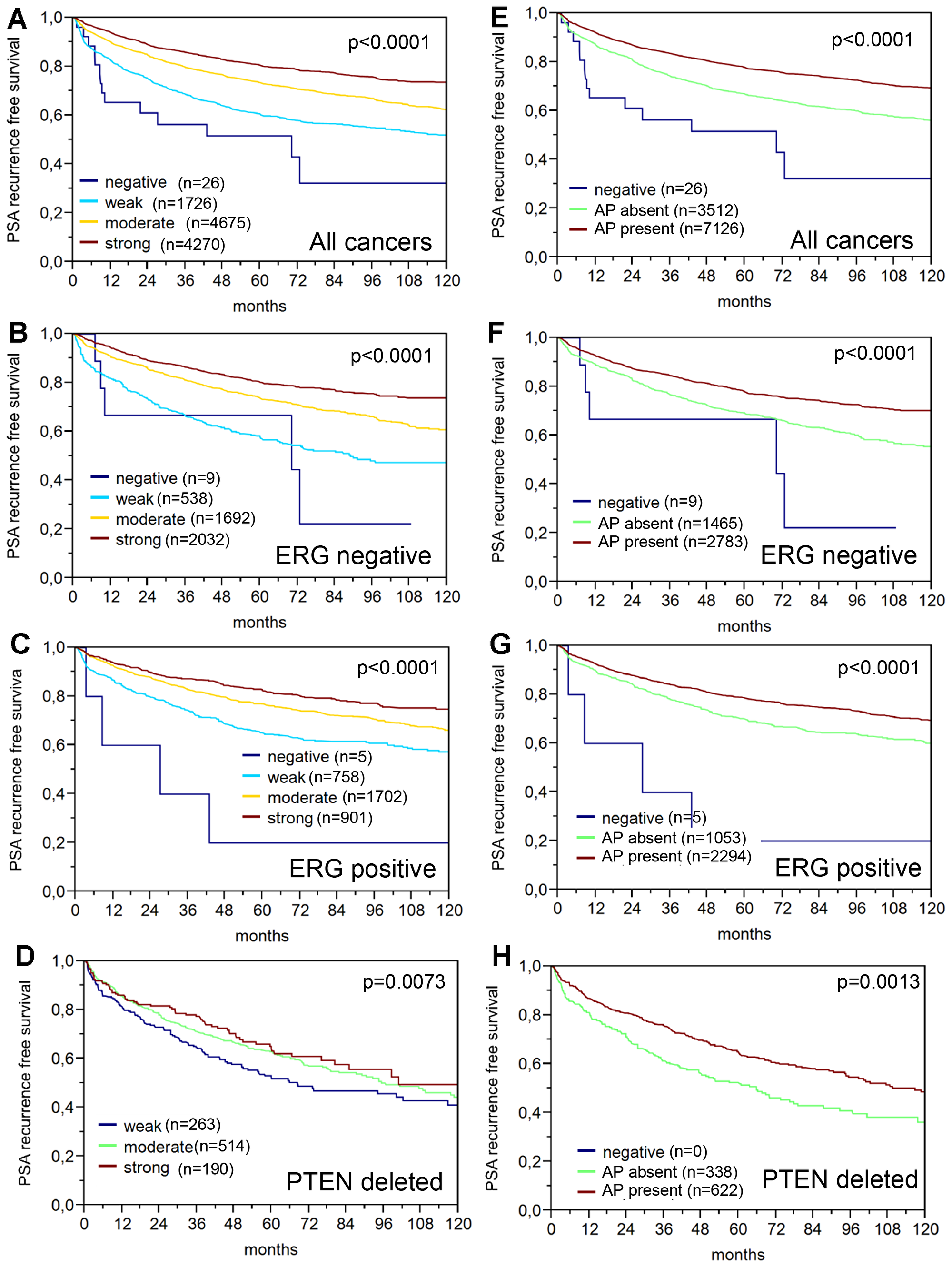 Prognostic relevance of PSA immunostaining (dilution 1:800) in prostate cancer.