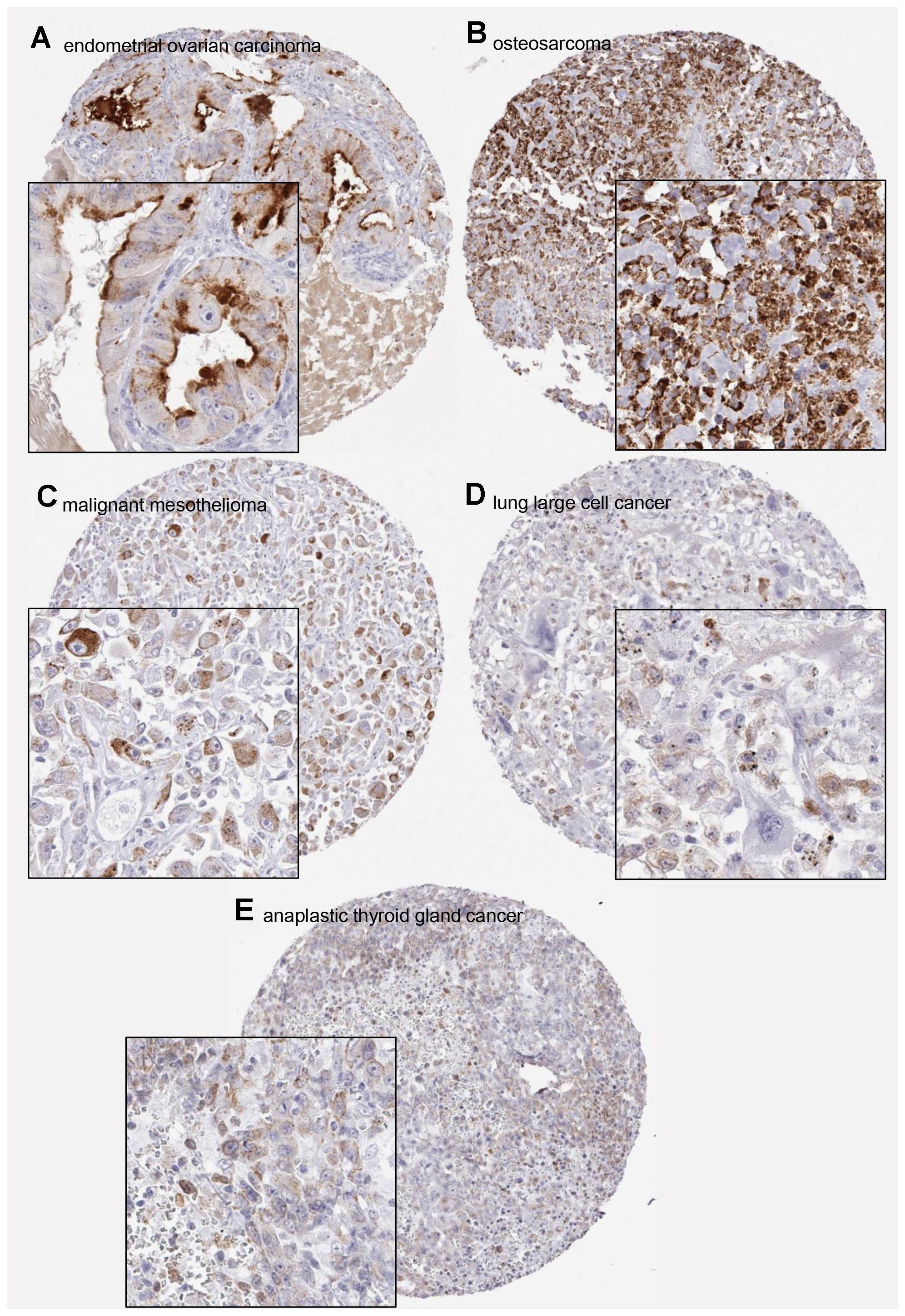 Examples of positive PSA immunostainings in non-prostatic tumors.