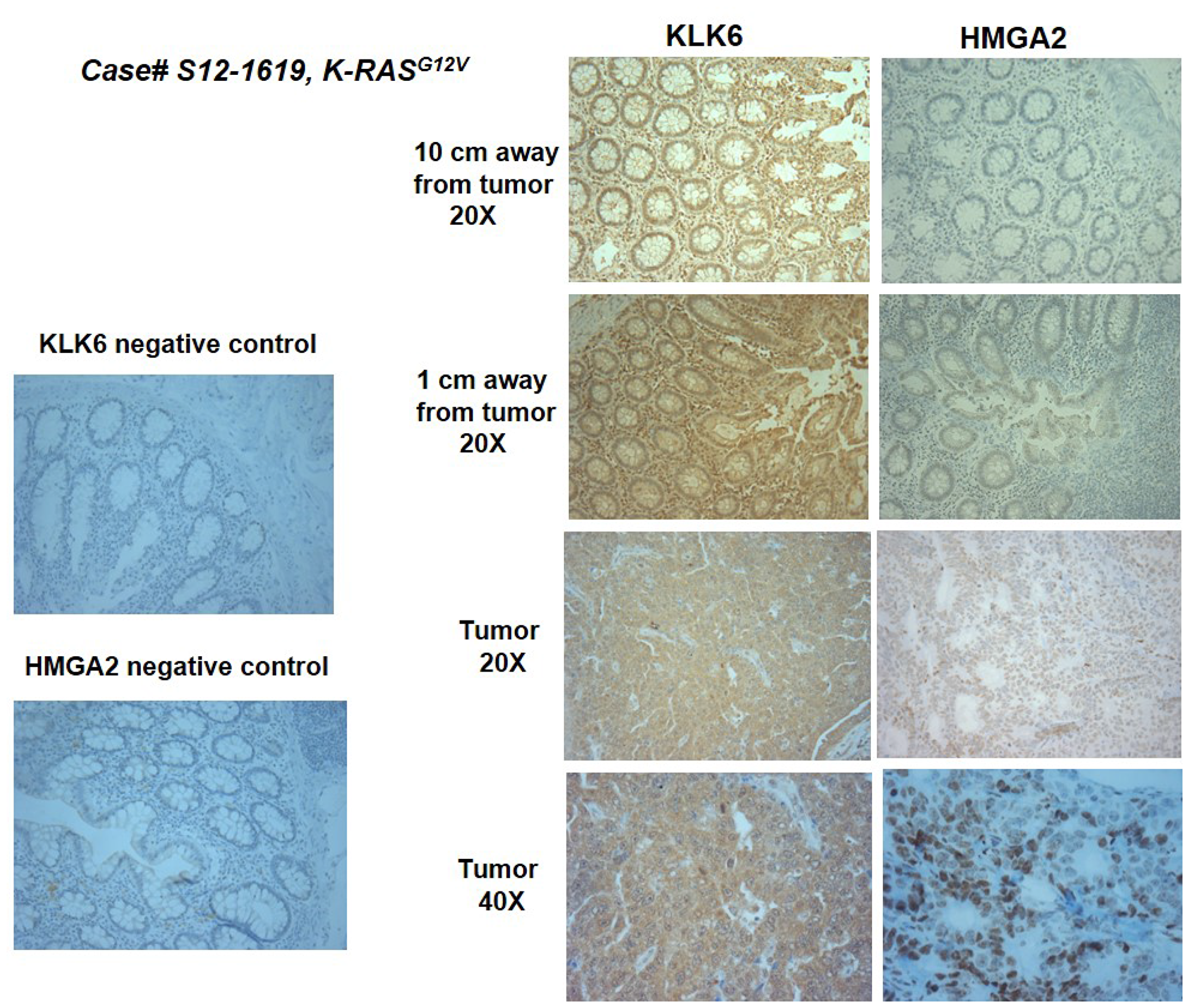 Representative images of KLK6 and HMGA2 IHC staining in the surgical material of a colon cancer patient.