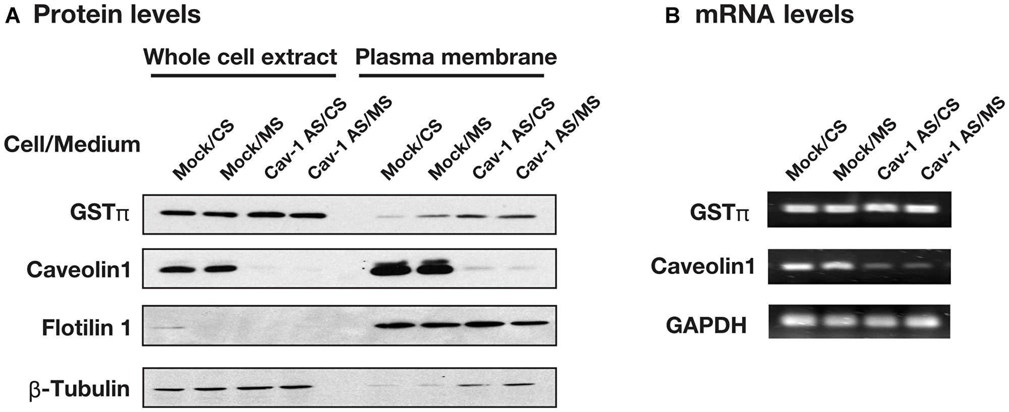 The effect of culture medium and caveolin-1 on the GSTπ expression.