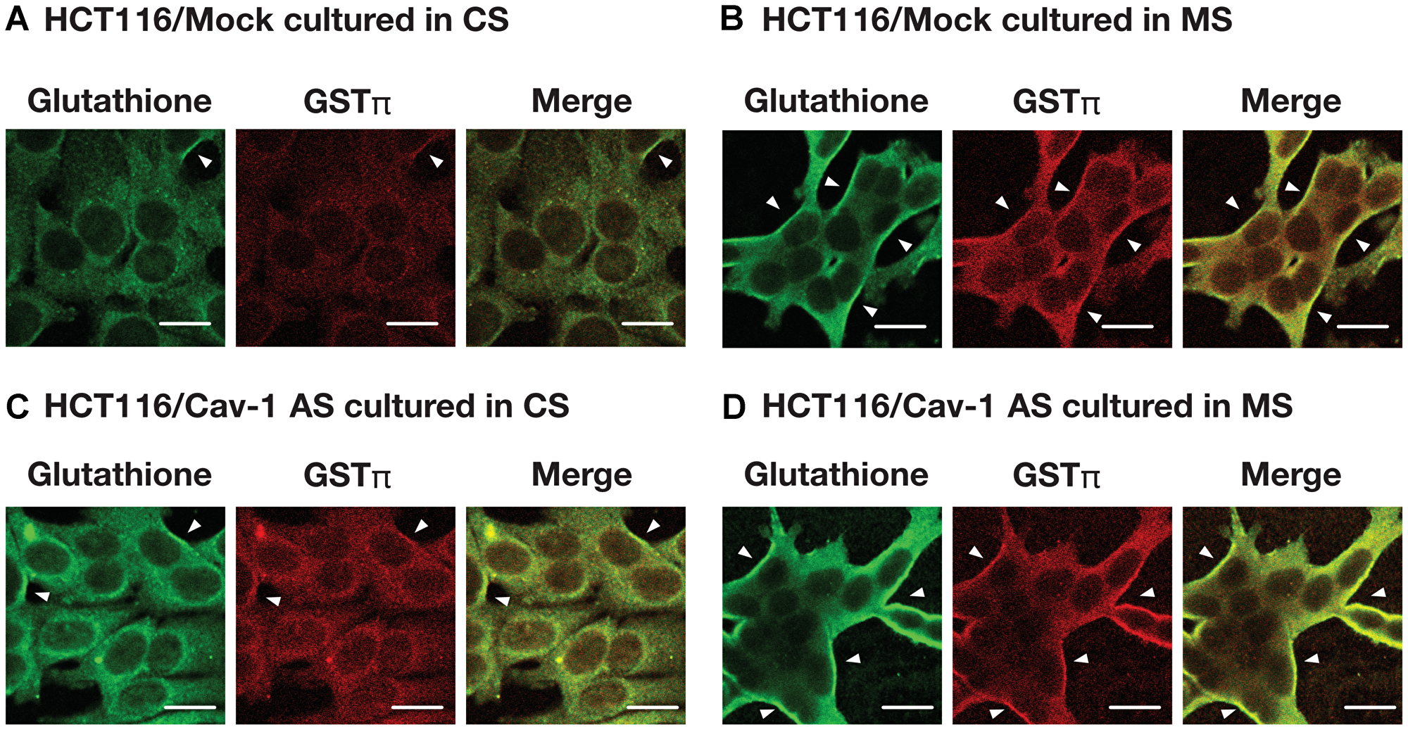 The effect of culture medium on S-glutathionylated protein and GSTπ levels.