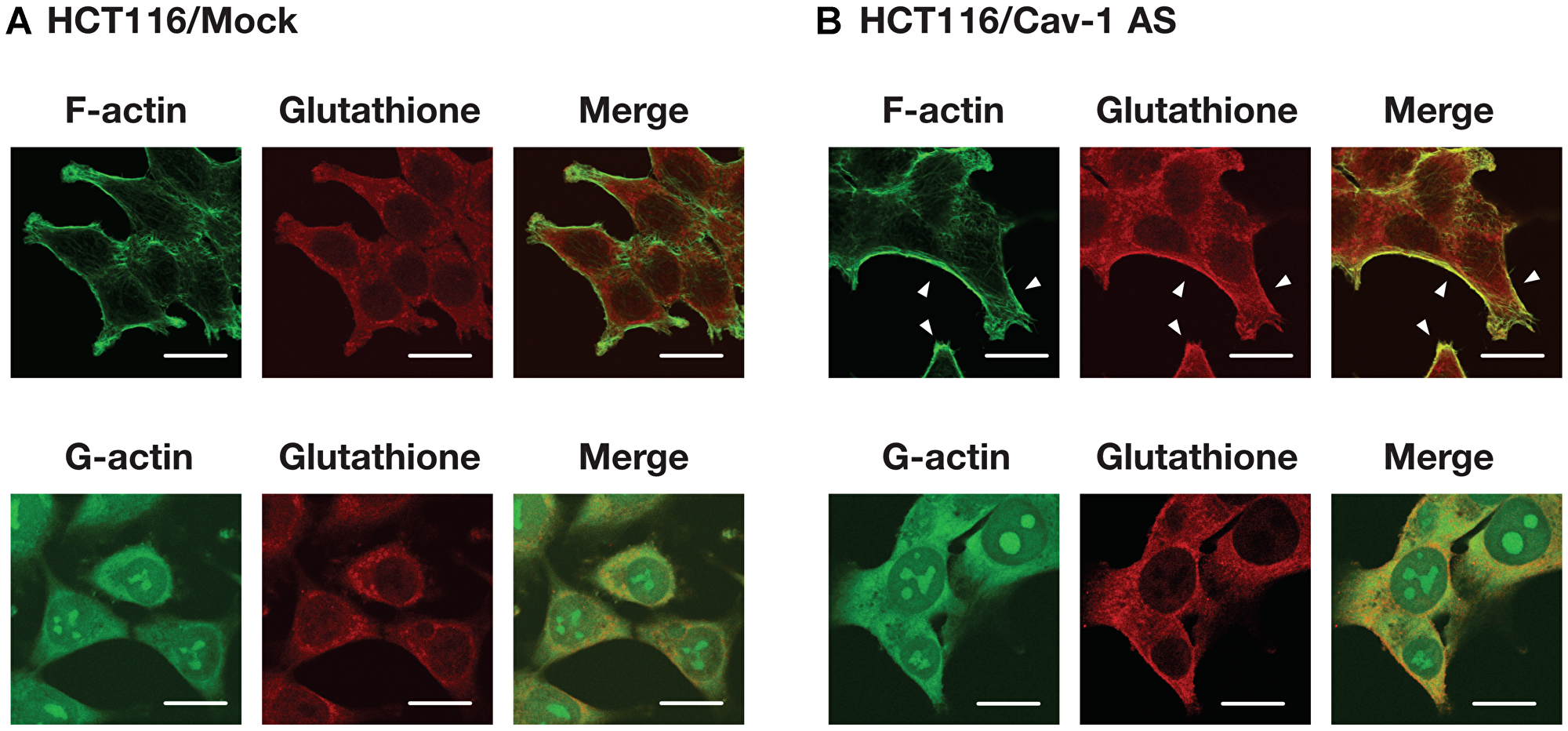 Cellular distribution of actin and S-glutathionylated protein.