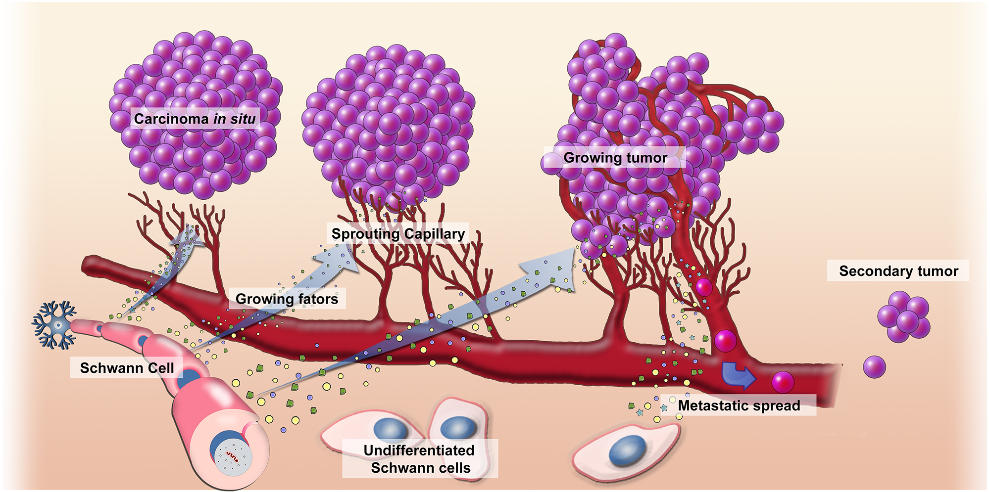 Mechanism of action of Schwann cells in the development of cancer.