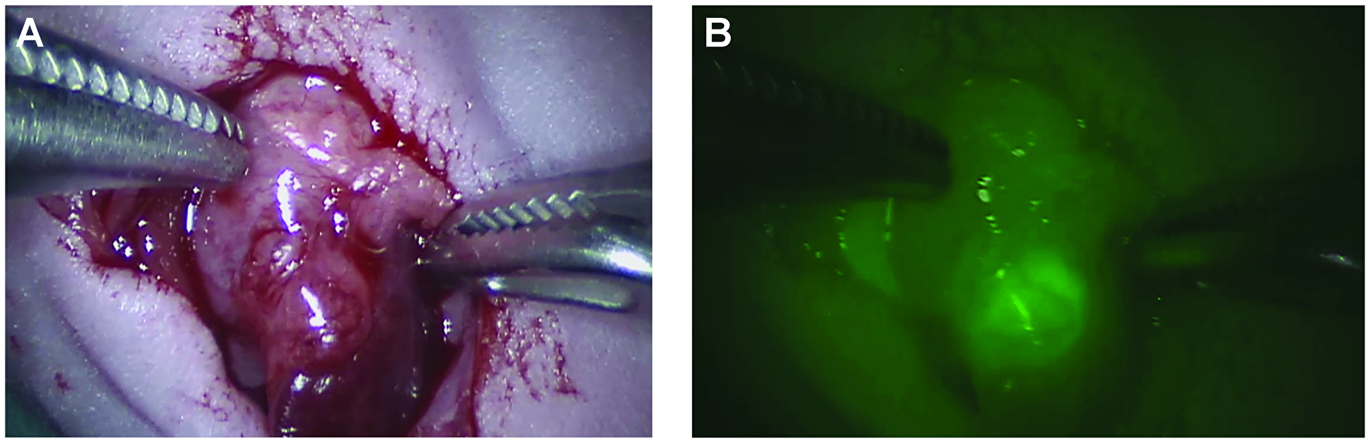 Images of a primary orthotopic pancreas human xenograft tumor as seen with the robotic Da Vinci® system.