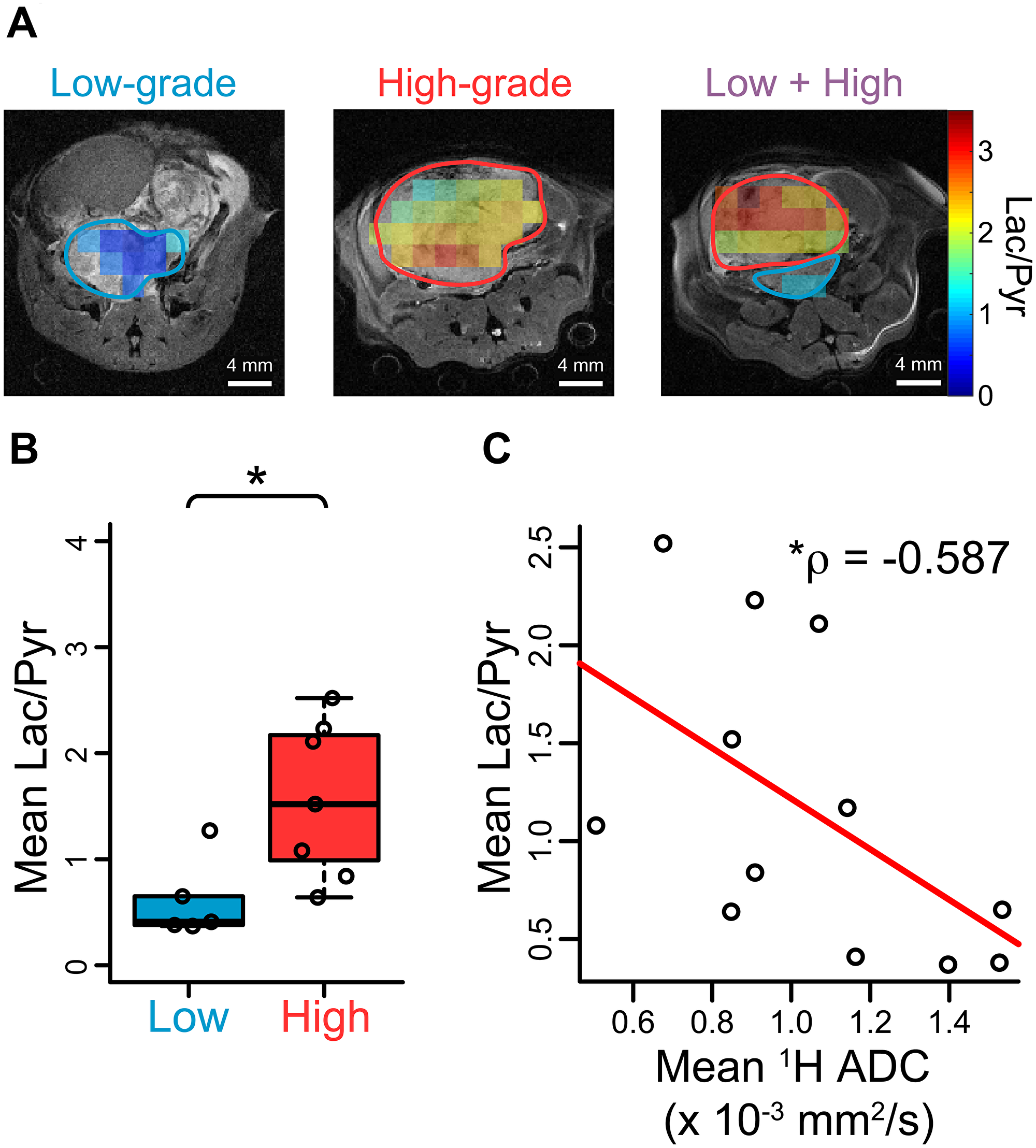 Hyperpolarized [1-13C] pyruvate imaging in TRAMP mice confirms glycolytic differences between low- and high-grade cancers.
