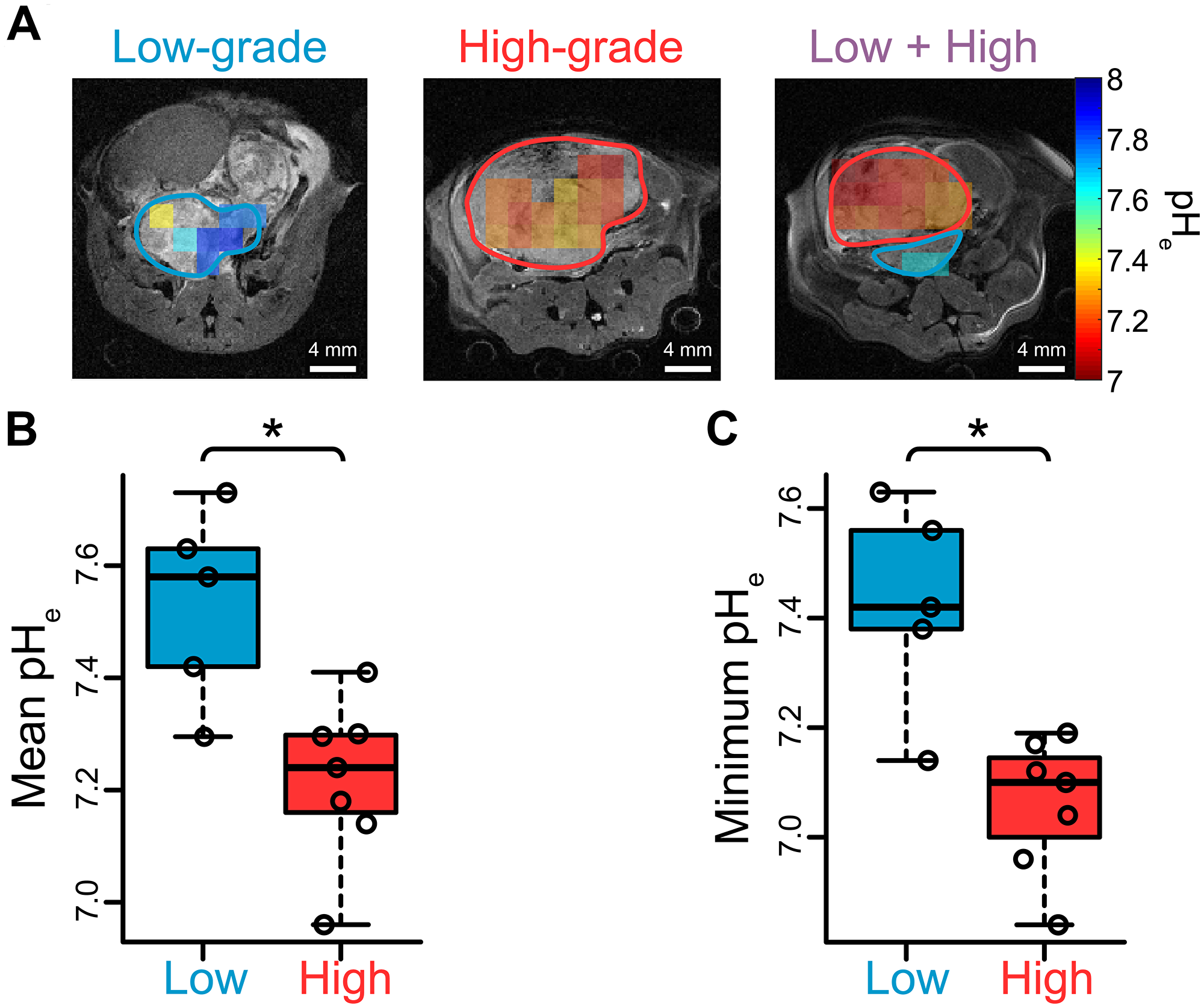 Extracellular pH measurements in TRAMP tumors via hyperpolarized [13C] bicarbonate imaging suggest extracellular acidification is associated with high-grade disease.