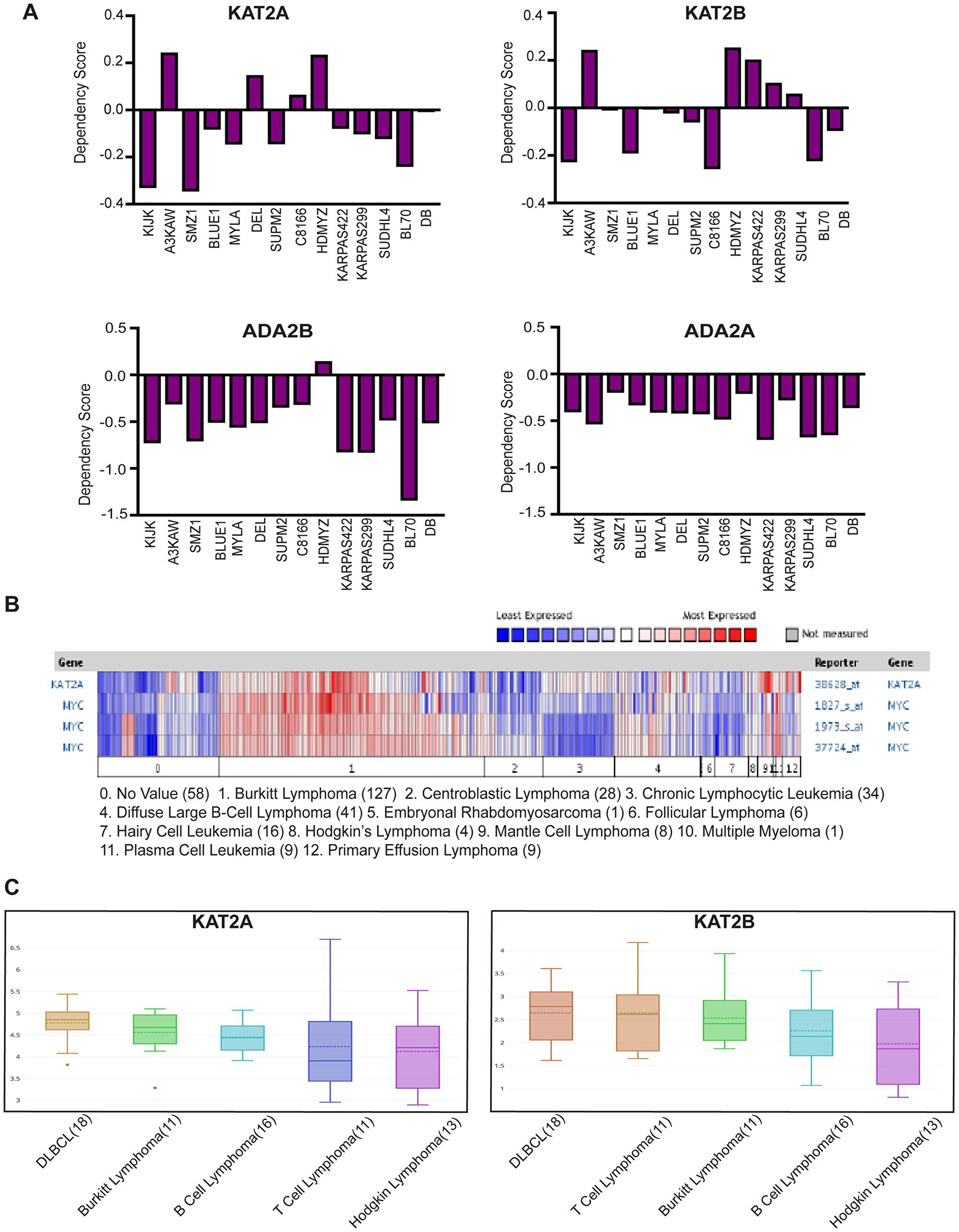GCN5 and SAGA is implicated in human Burkitt Lymphoma.