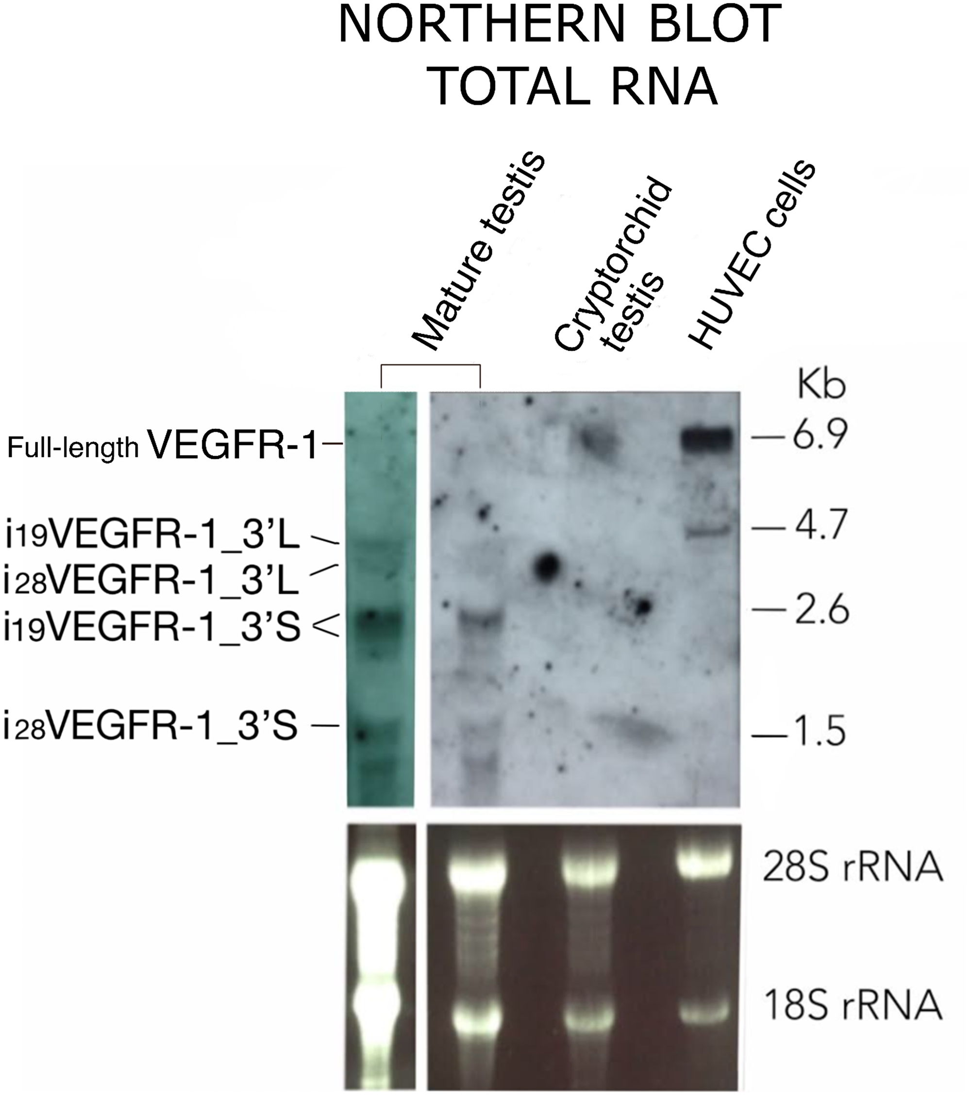 Northern blot pattern of VEGFR-1 from total RNA expressed in mature testis, cryptorchid testis and HUVEC cells as indicated.