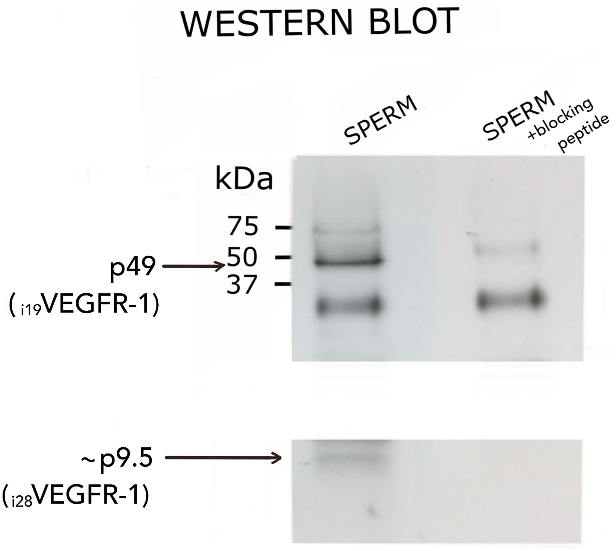 Western blot analysis of i19VEGFR-1 (p49) (49kDa) and putative i28VEGFR-1 (p9.5) (9.5kDa) isoforms expressed in normal sperm samples.