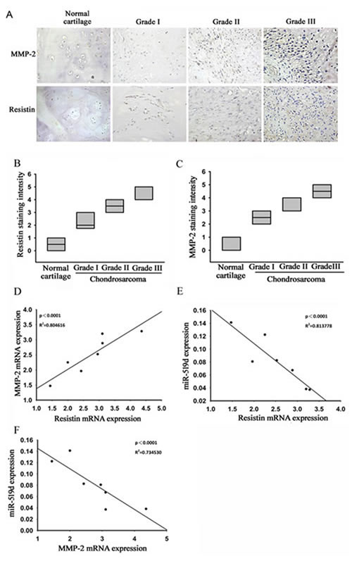Clinical importance of resistin, matrix metalloproteinase (MMP-2), and microRNA (miR)-519d in chondrosarcoma.