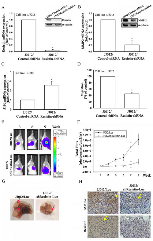 Knockdown of resistin suppresses lung metastasis