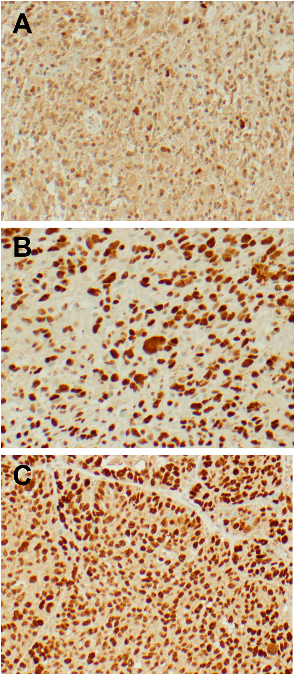 Representative IHC images from freshly resected tumor samples.