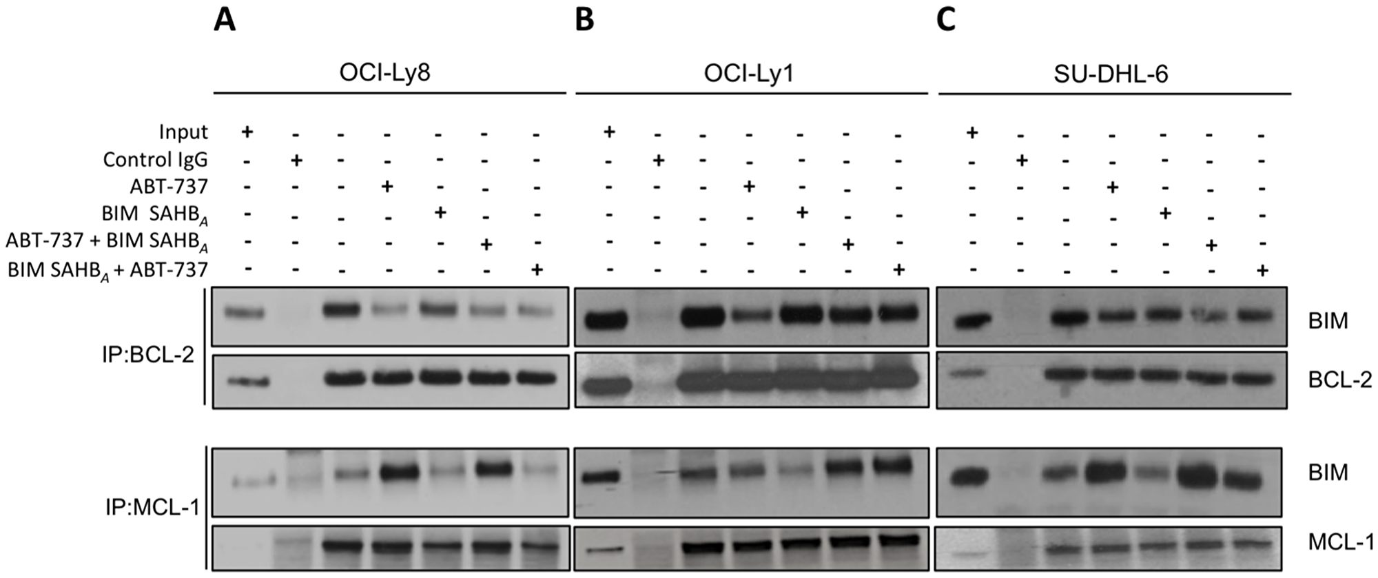 BIM SAHBA preferentially targets MCL-1 over BCL-2 in ABT-737-sensitive DLBCL.