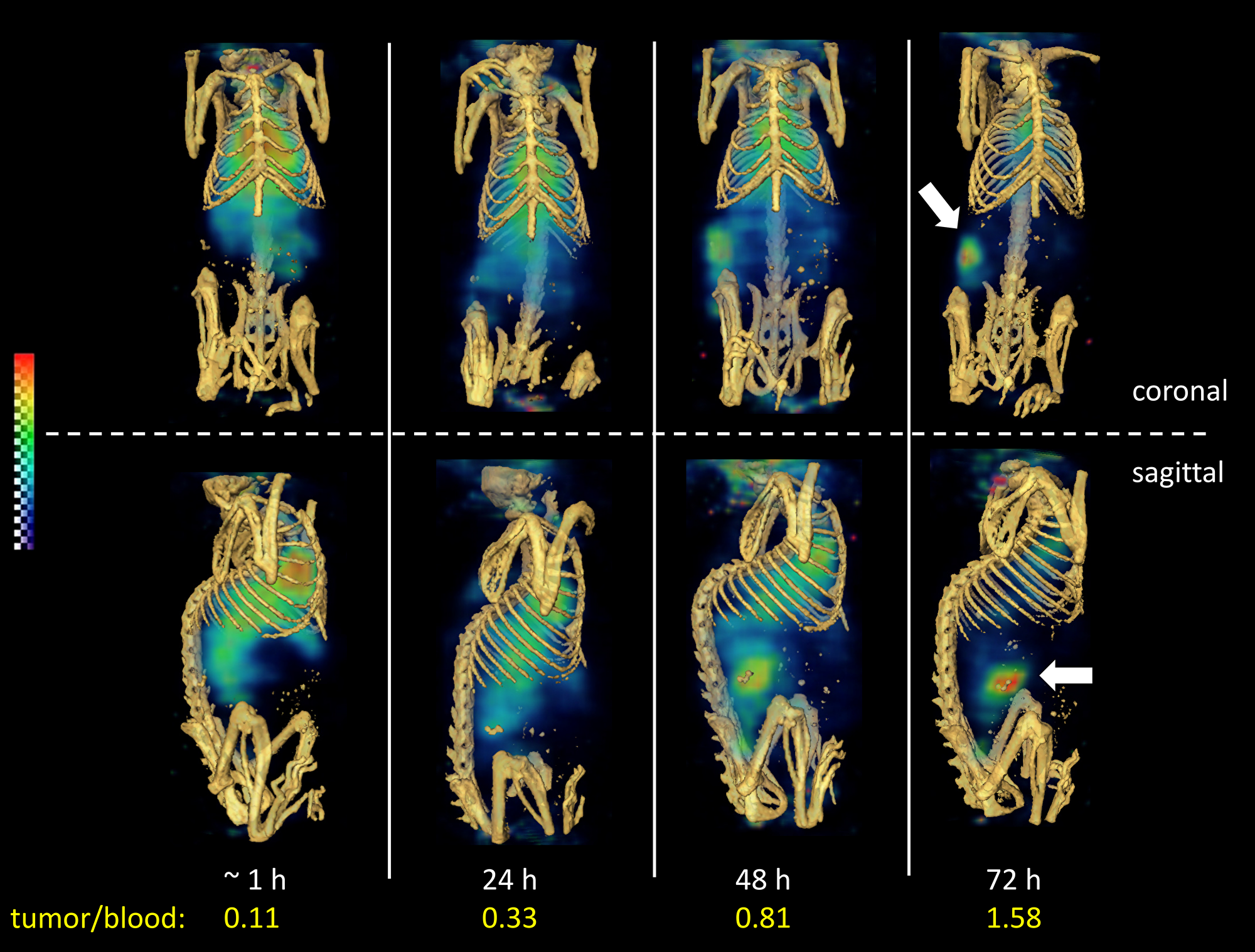 Reconstructed three-dimensional volume rendered SPECT-CT fusion images of 111In-ADC (without predose) administered to LuCaP96.1 tumor explant bearing mice intravenously.