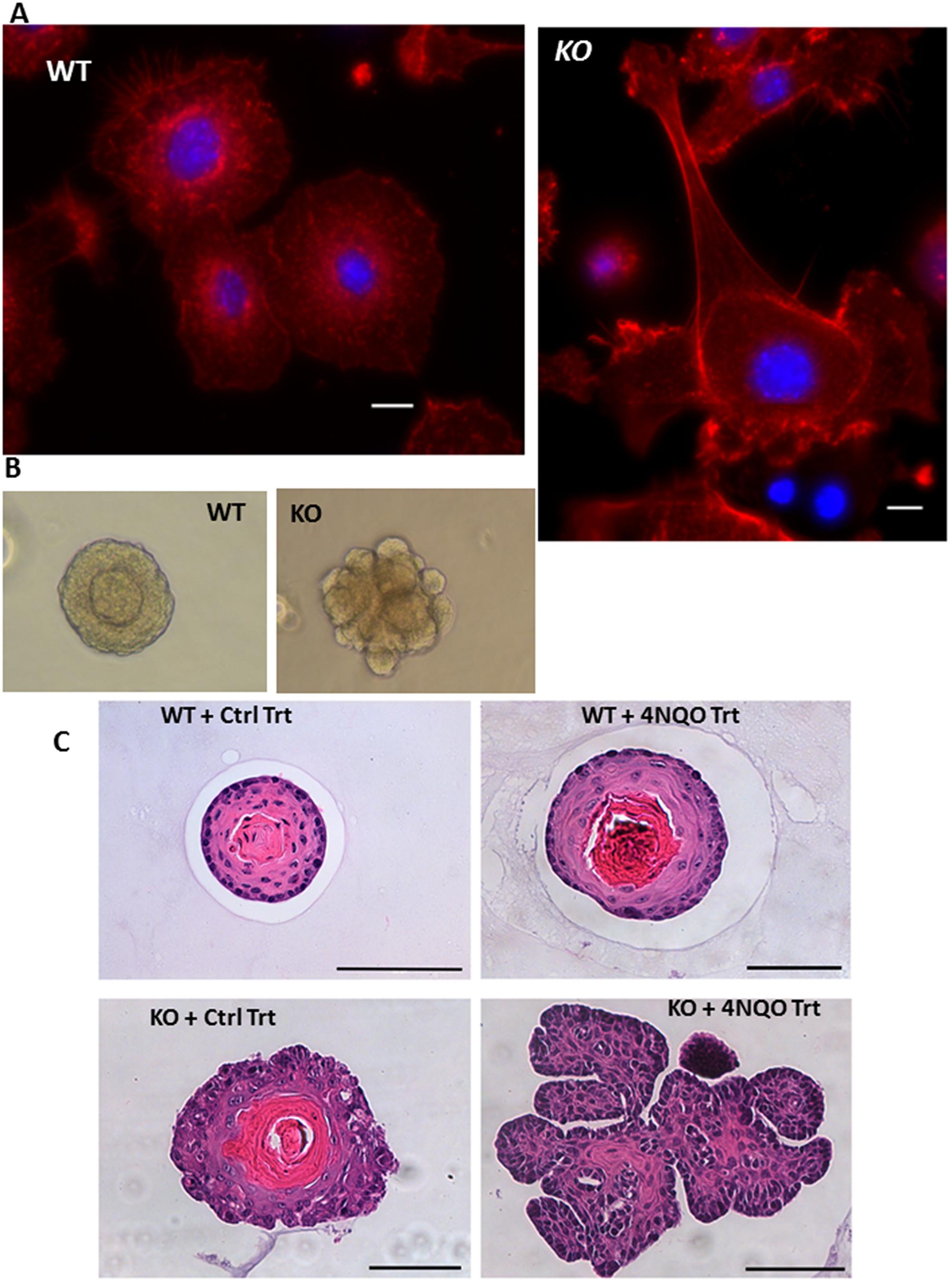 Altered morphology of MPV17-/- organoids.