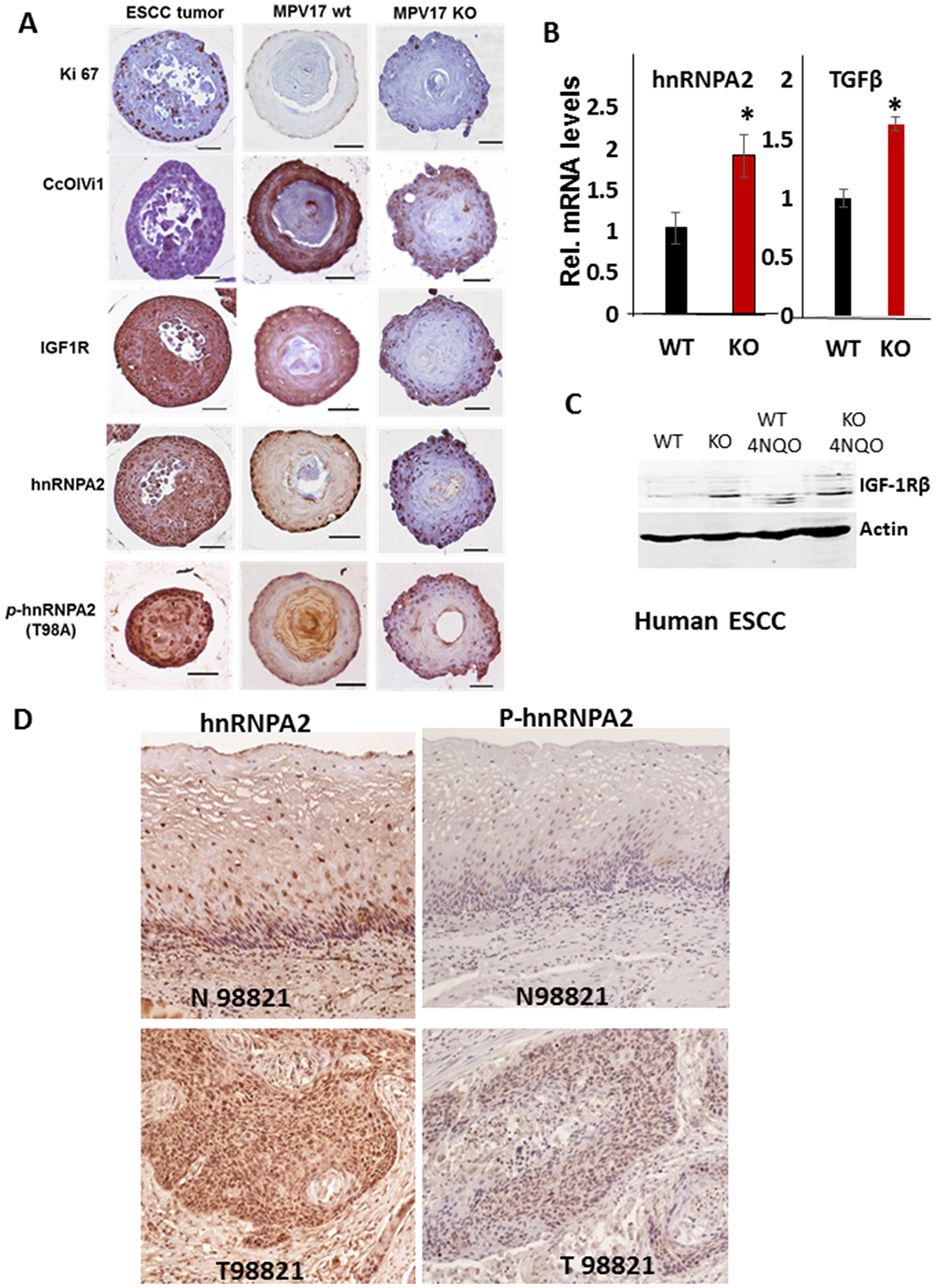 MPV17-/- esophageal 3D organoids show elevated expression of oncogenic MtRS marker proteins.