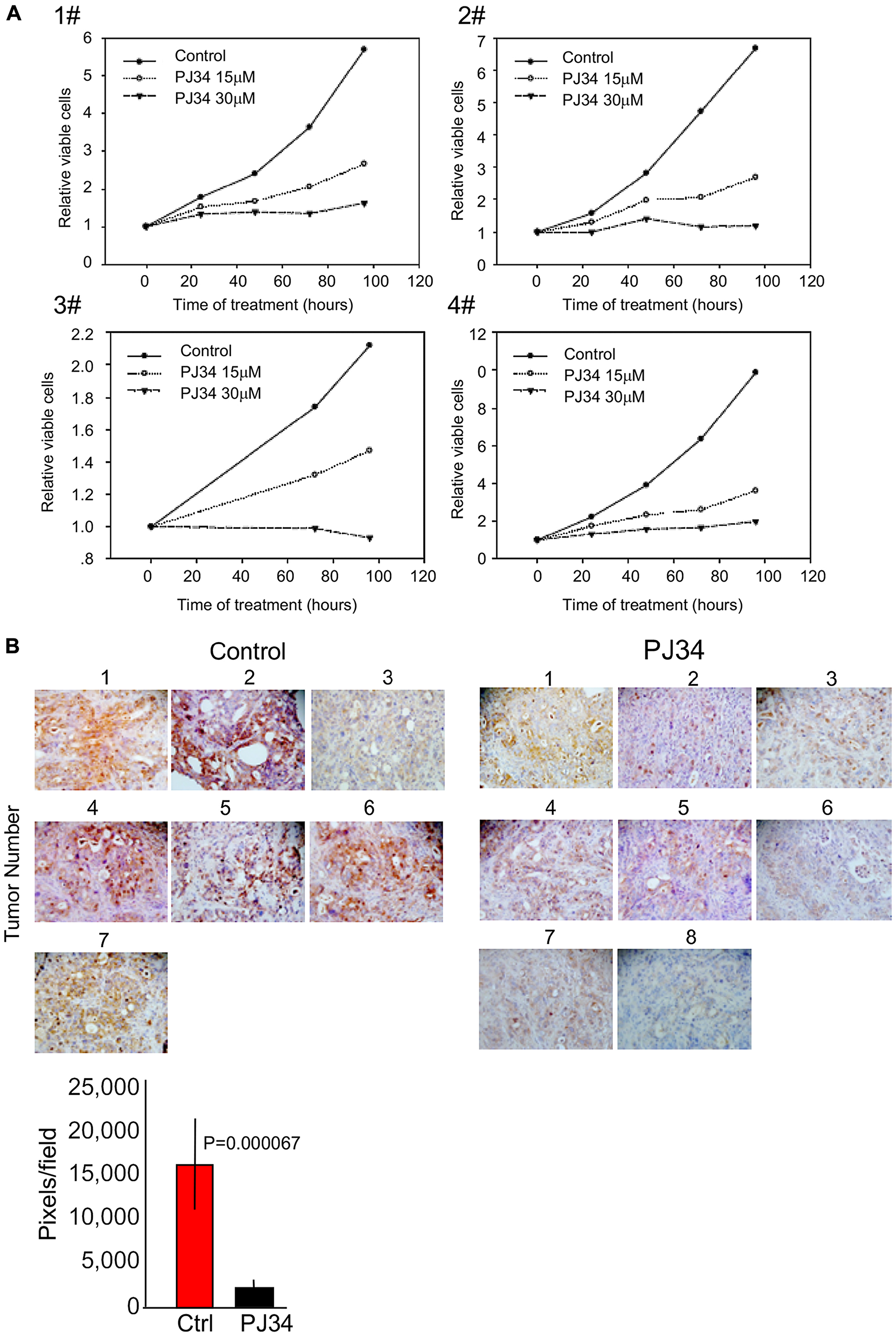 PJ34 cytotoxicity in patients-derived pancreas cancer cells.