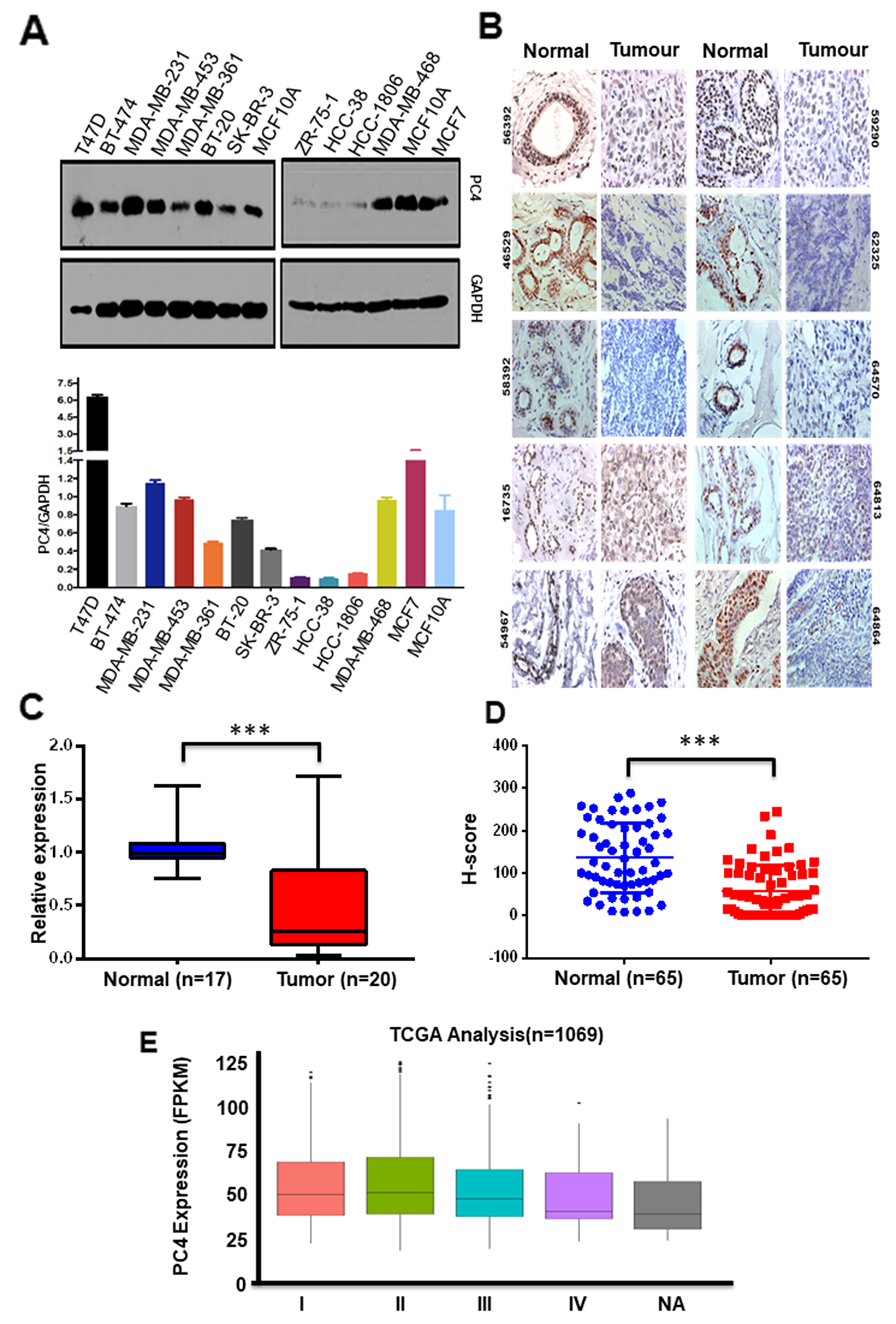 PC4 expression is predominantly downregulated in breast cancer patient samples.