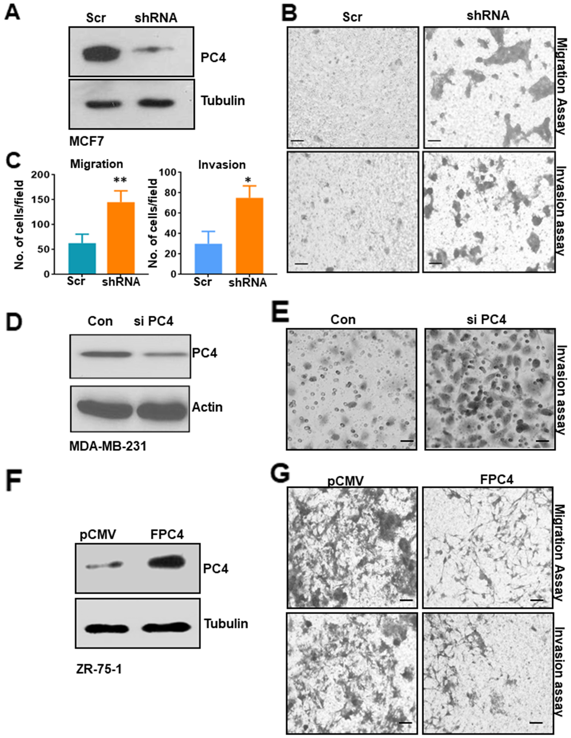 PC4 downregulation in breast cancer cell line enhances its tumorigenic properties.