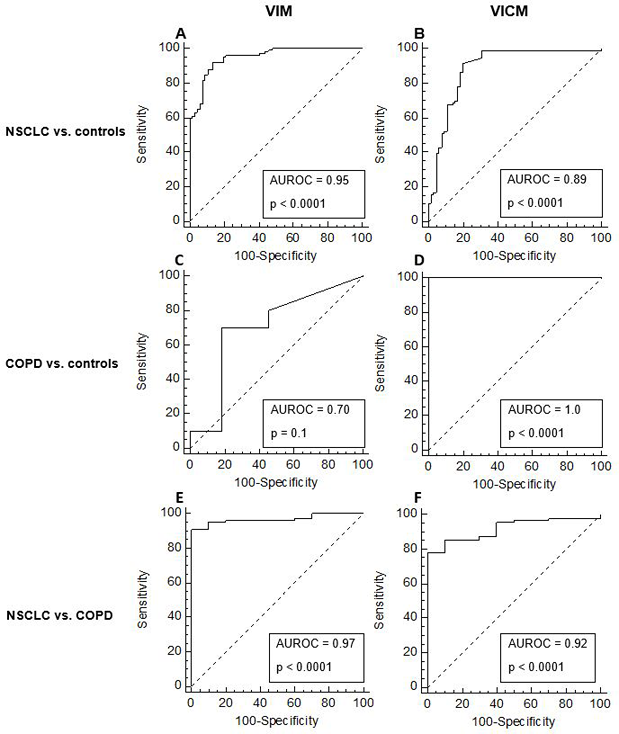 Diagnostic power of MMP-degraded vimentin (VIM) and MMP-degraded and citrullinated vimentin (VICM) for separating non-small cell lung cancer (NSCLC) and chronic obstructive pulmonary disease (COPD) from healthy controls.