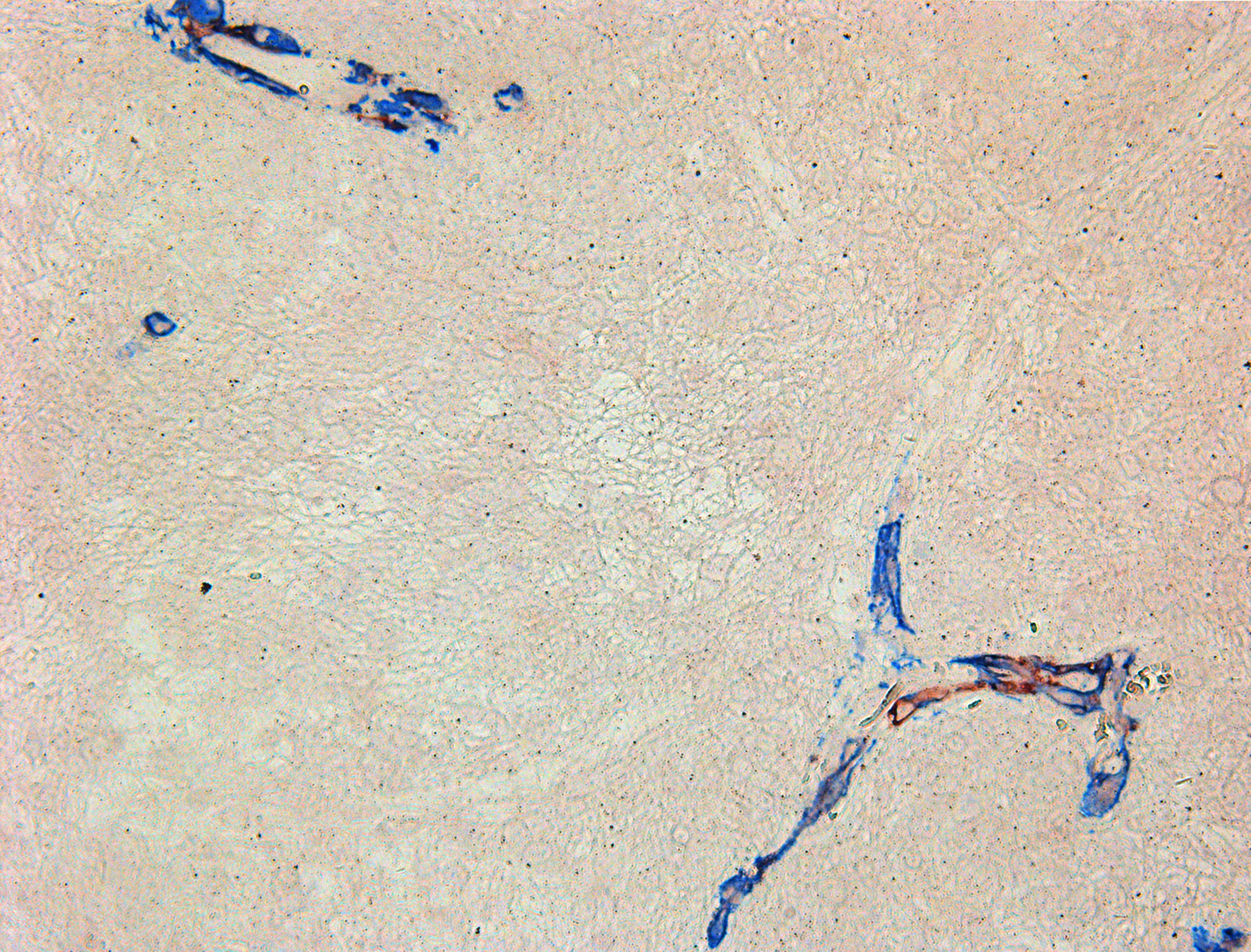 Double-stain IHC of small cell glioblastoma with NG2/SMA antibodies.