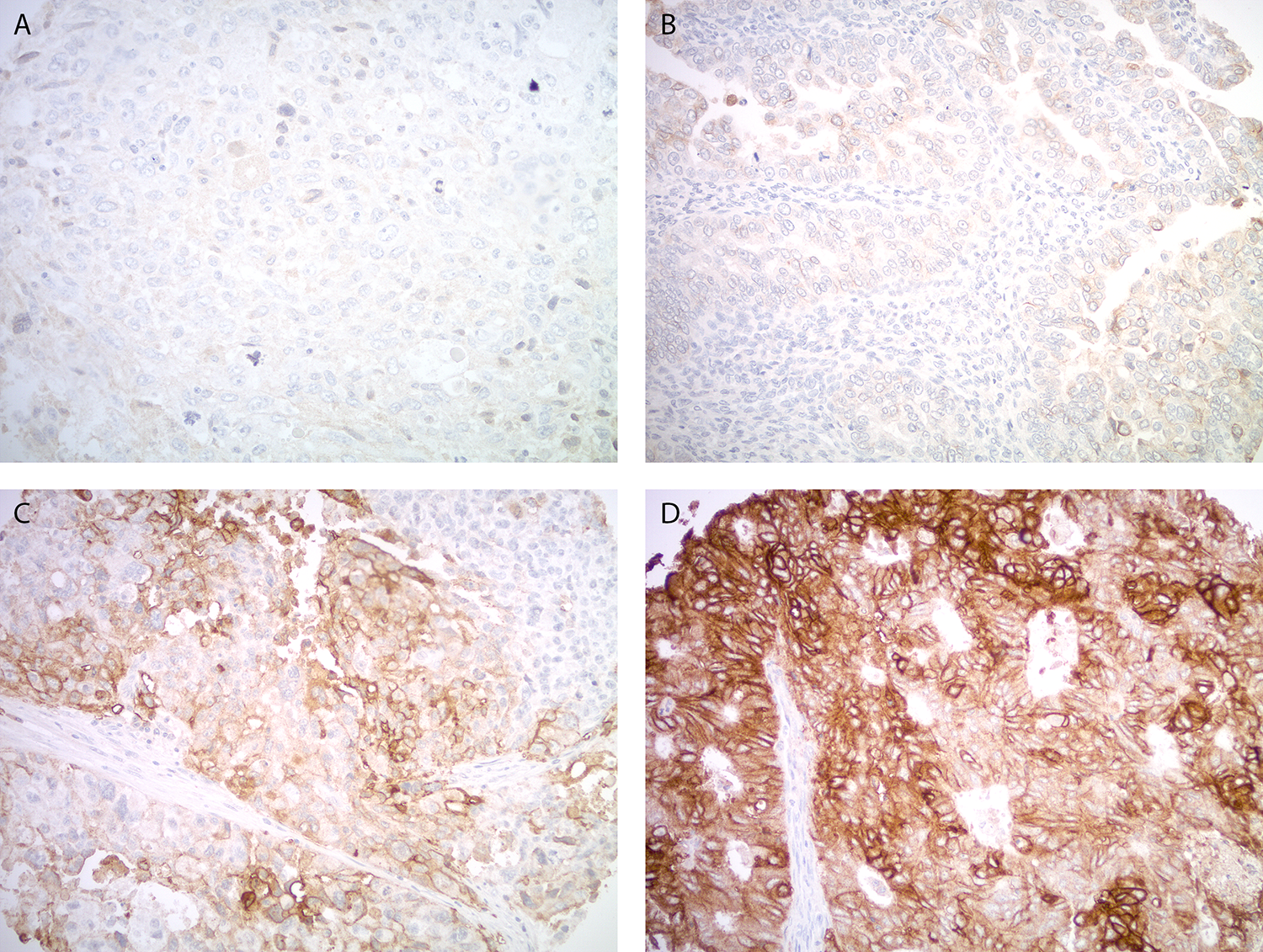 Trop-2 expression by immunohistochemistry in uterine carcinosarcoma.