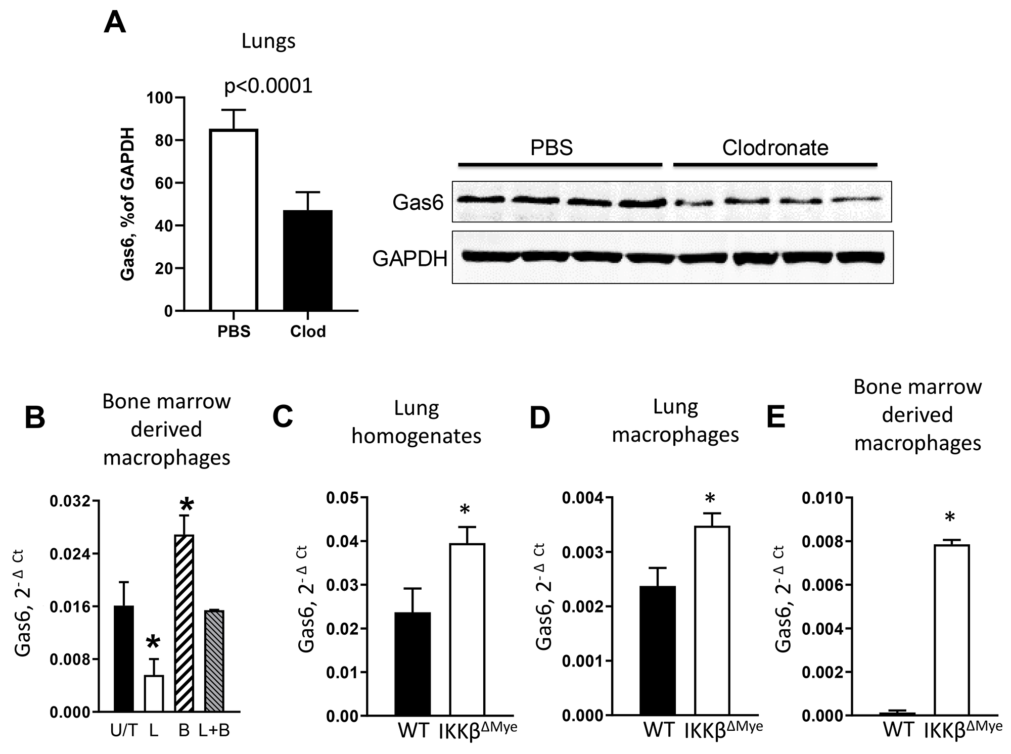 NF-κB down-regulates Gas6 expression in myeloid cells.