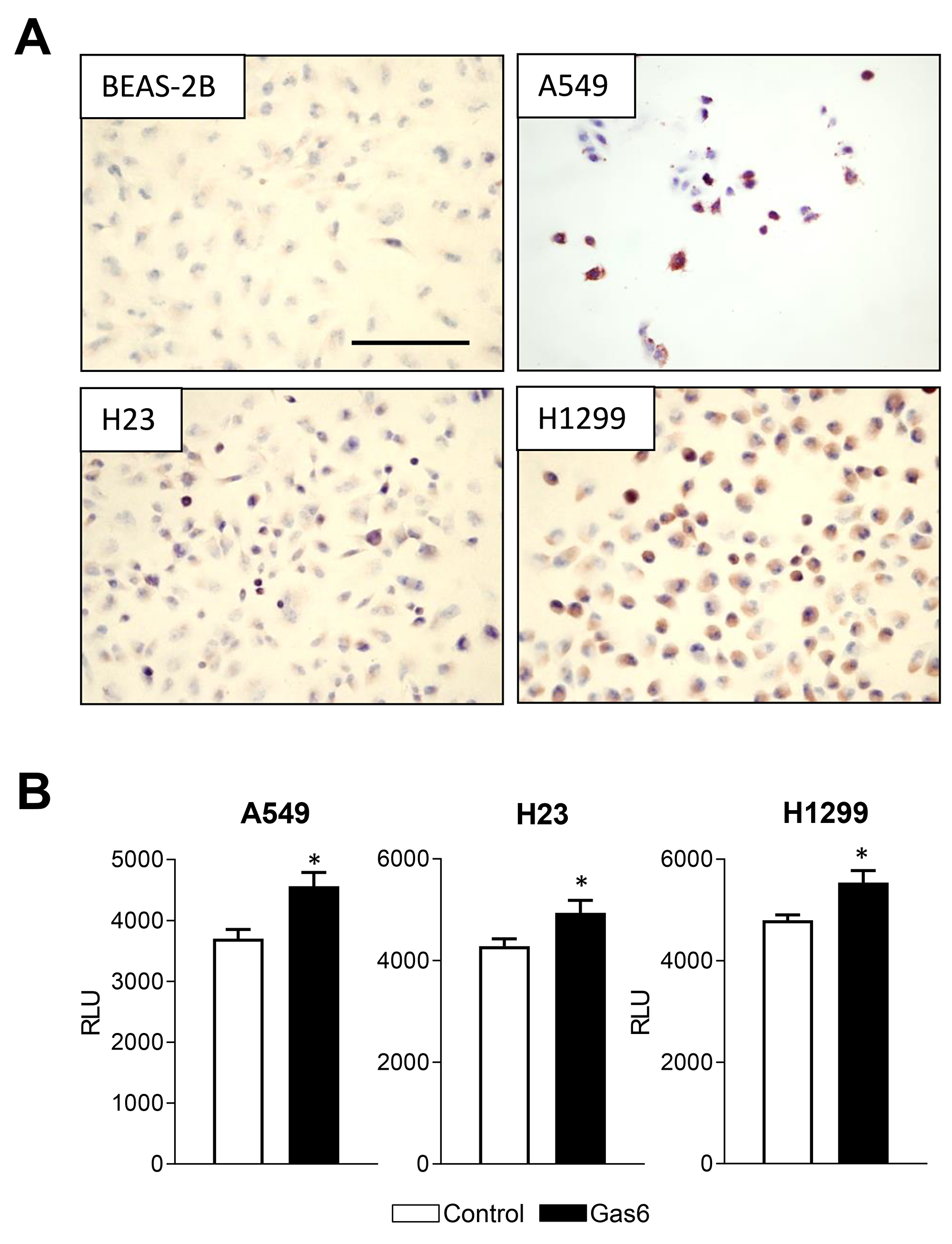 Gas6 promotes proliferation of human lung cancer cells.