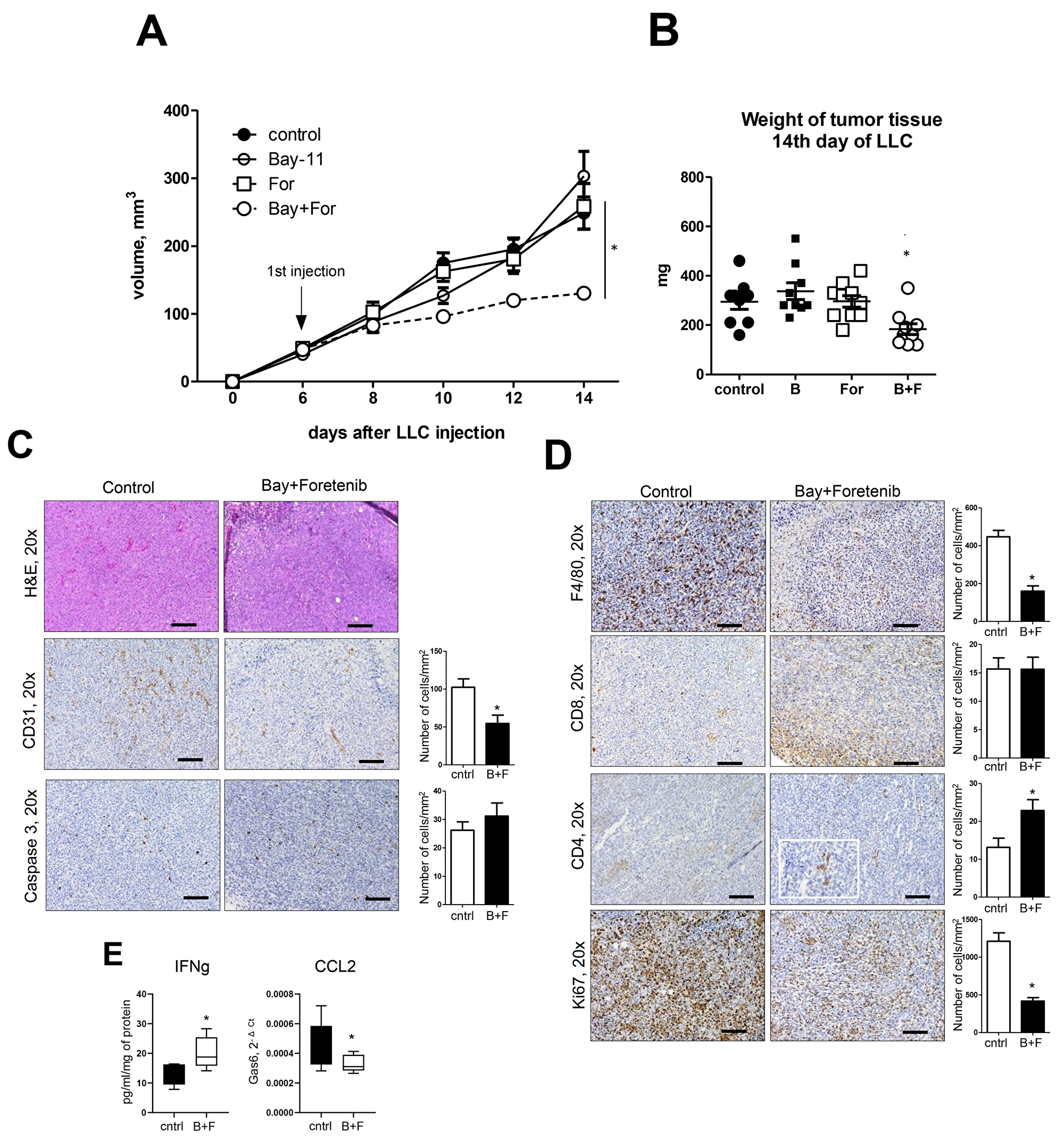 Treatment of mice with combination of NF-κB inhibitor and MerTK antagonist blocks lung cancer growth.