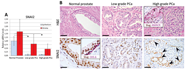 Expression of SNAI2 in normal and neoplastic prostate tissue.