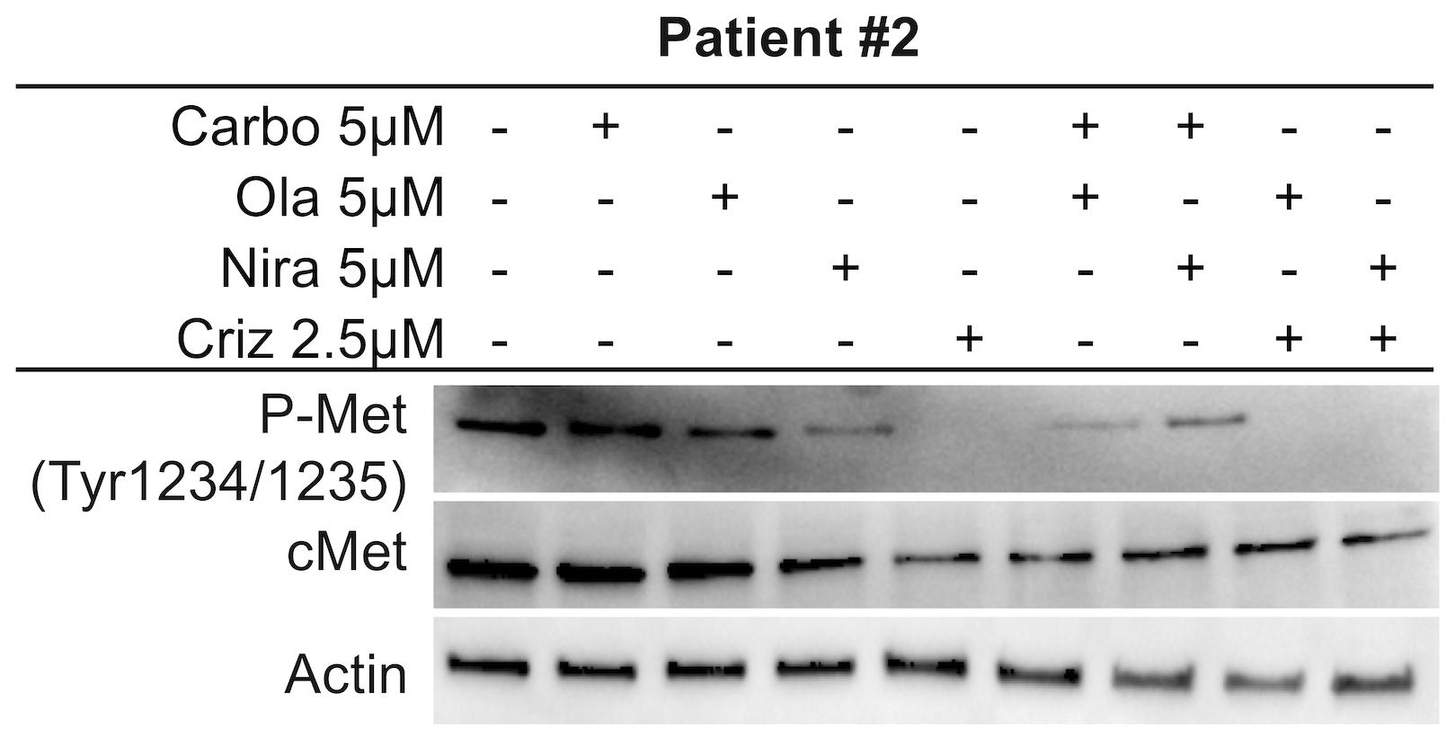 c-Met inhibition in Patient #2.